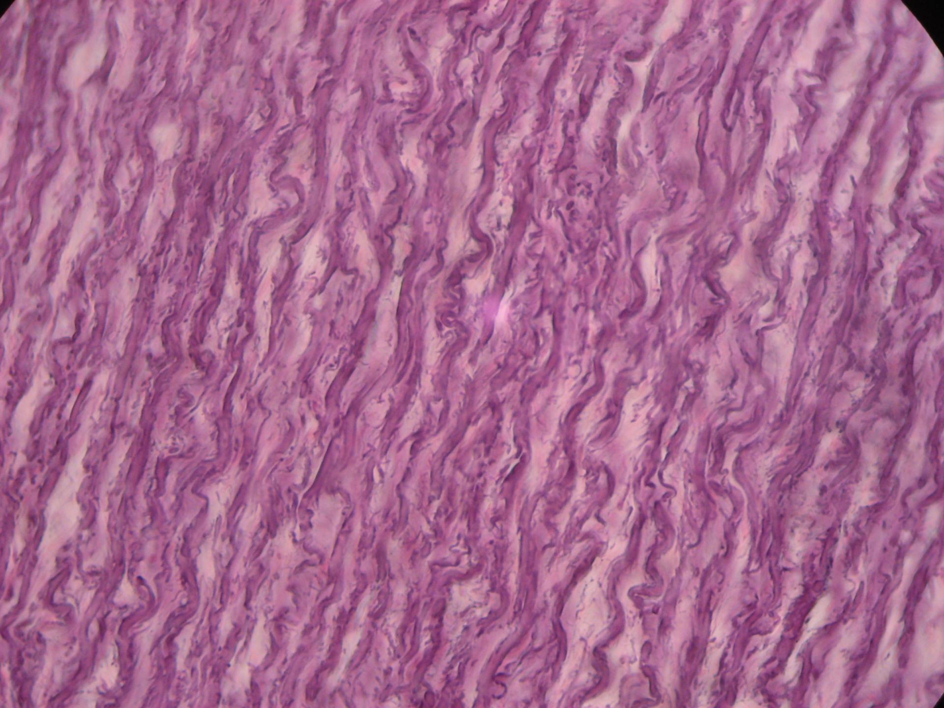 Aorta of pig