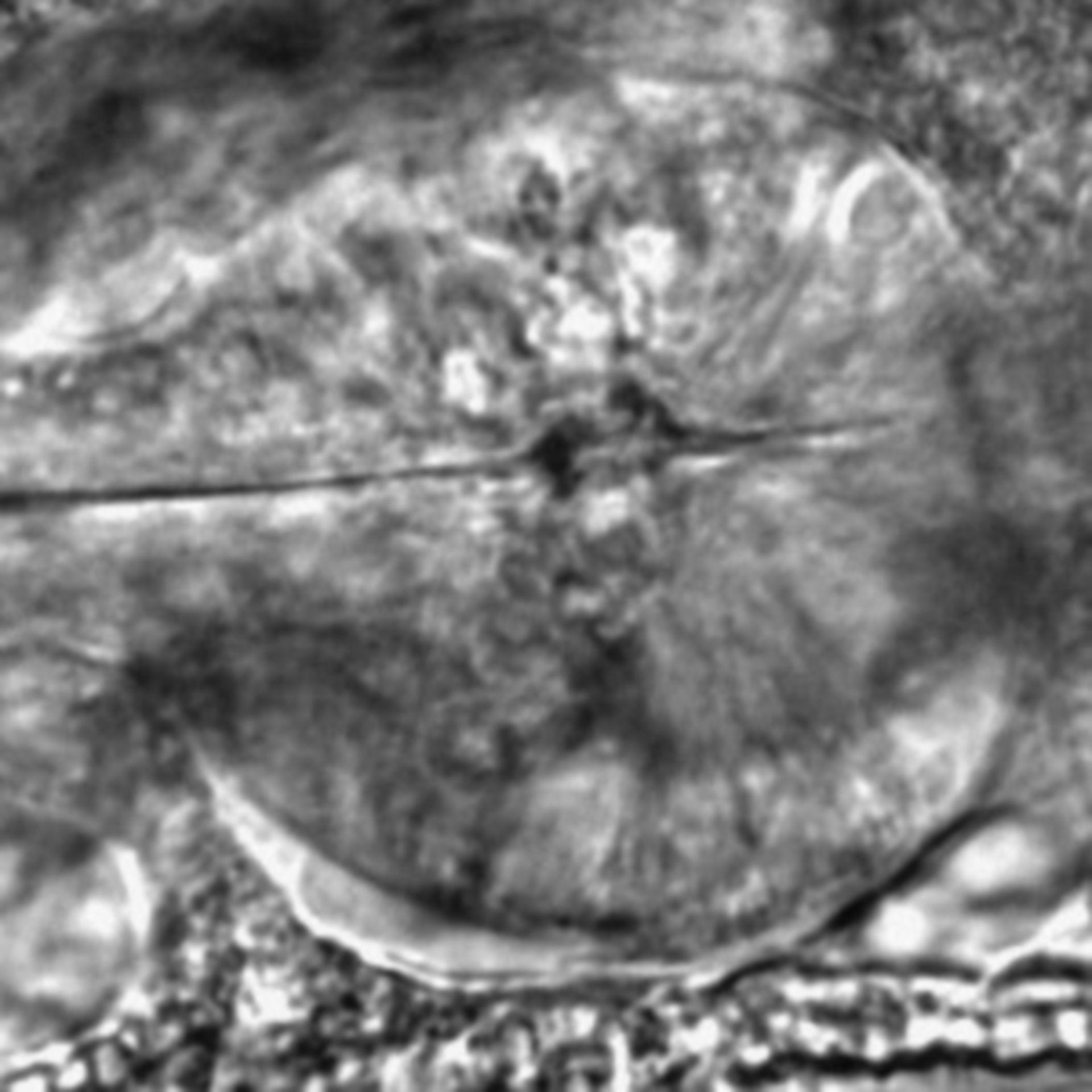 Caenorhabditis elegans - CIL:2548