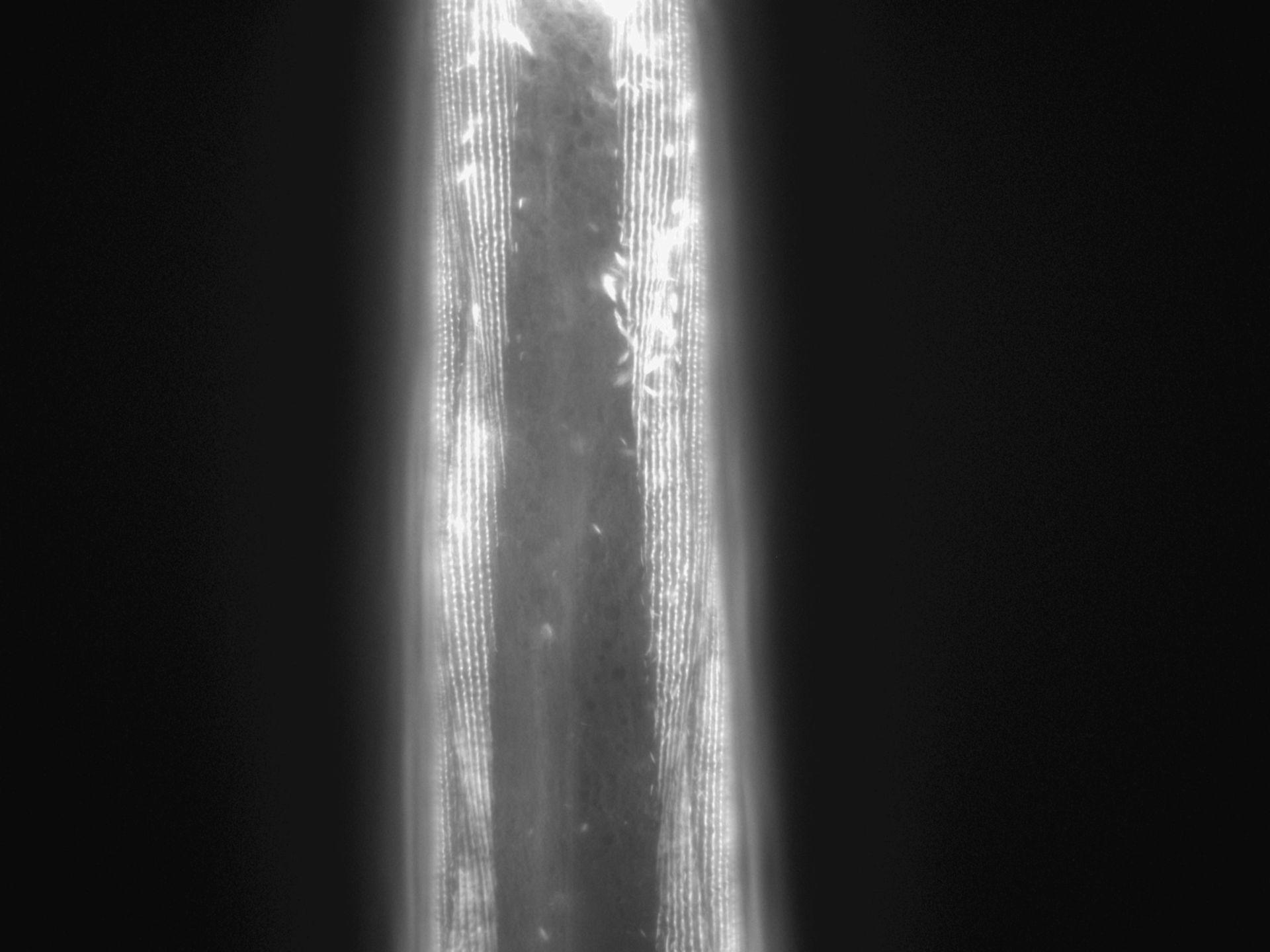 Caenorhabditis elegans (Actin filament) - CIL:1033