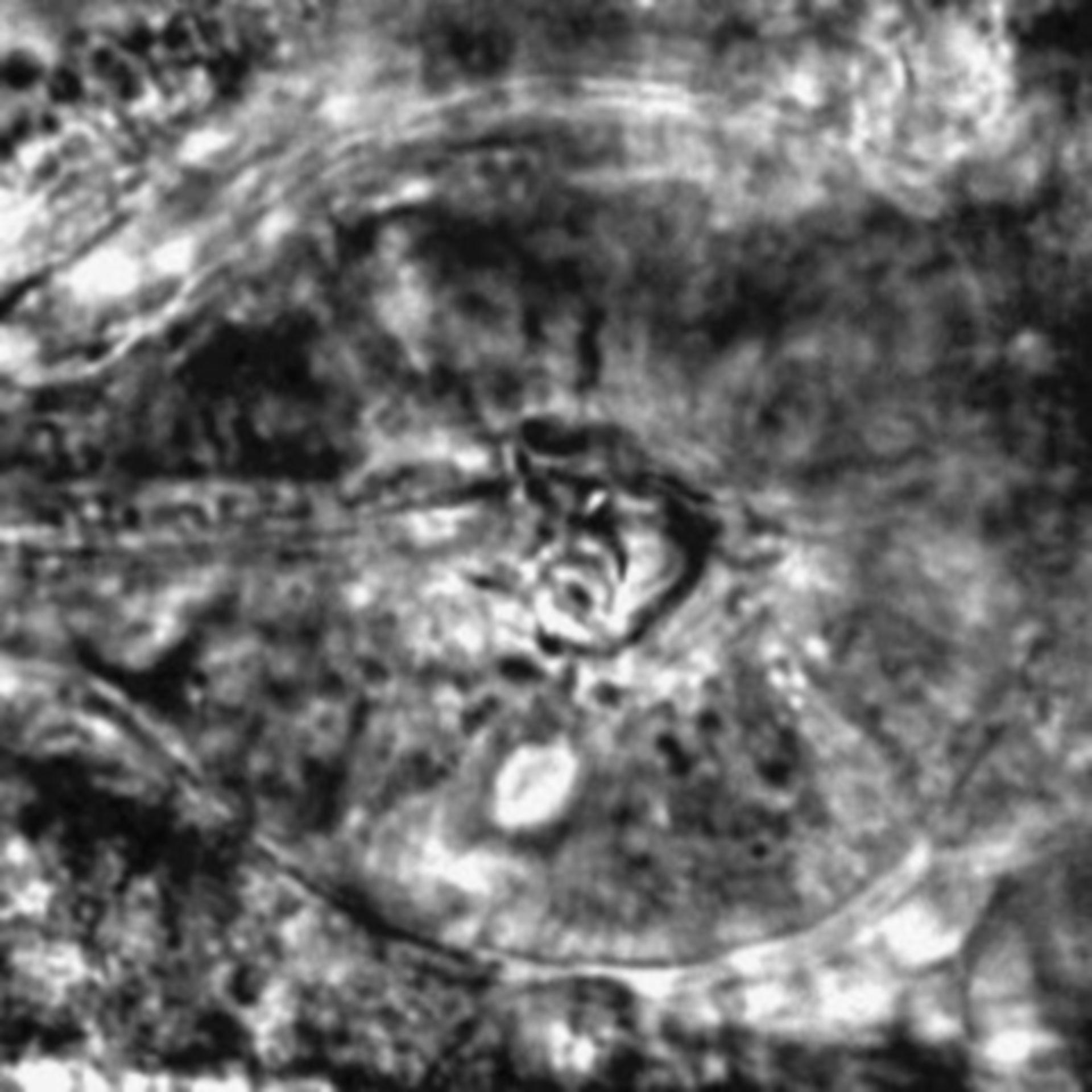 Caenorhabditis elegans - CIL:2547