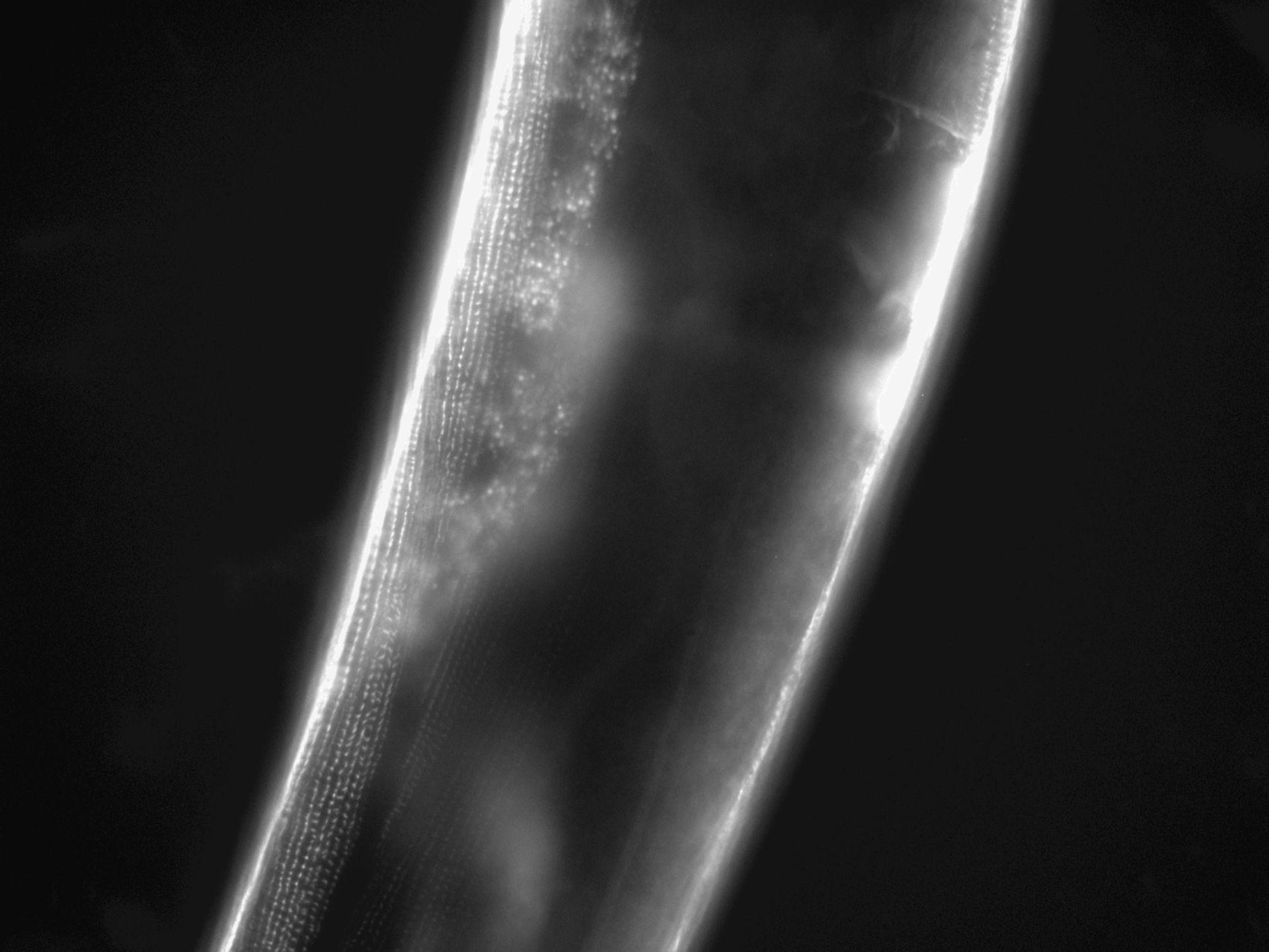 Caenorhabditis elegans (Actin filament) - CIL:1109
