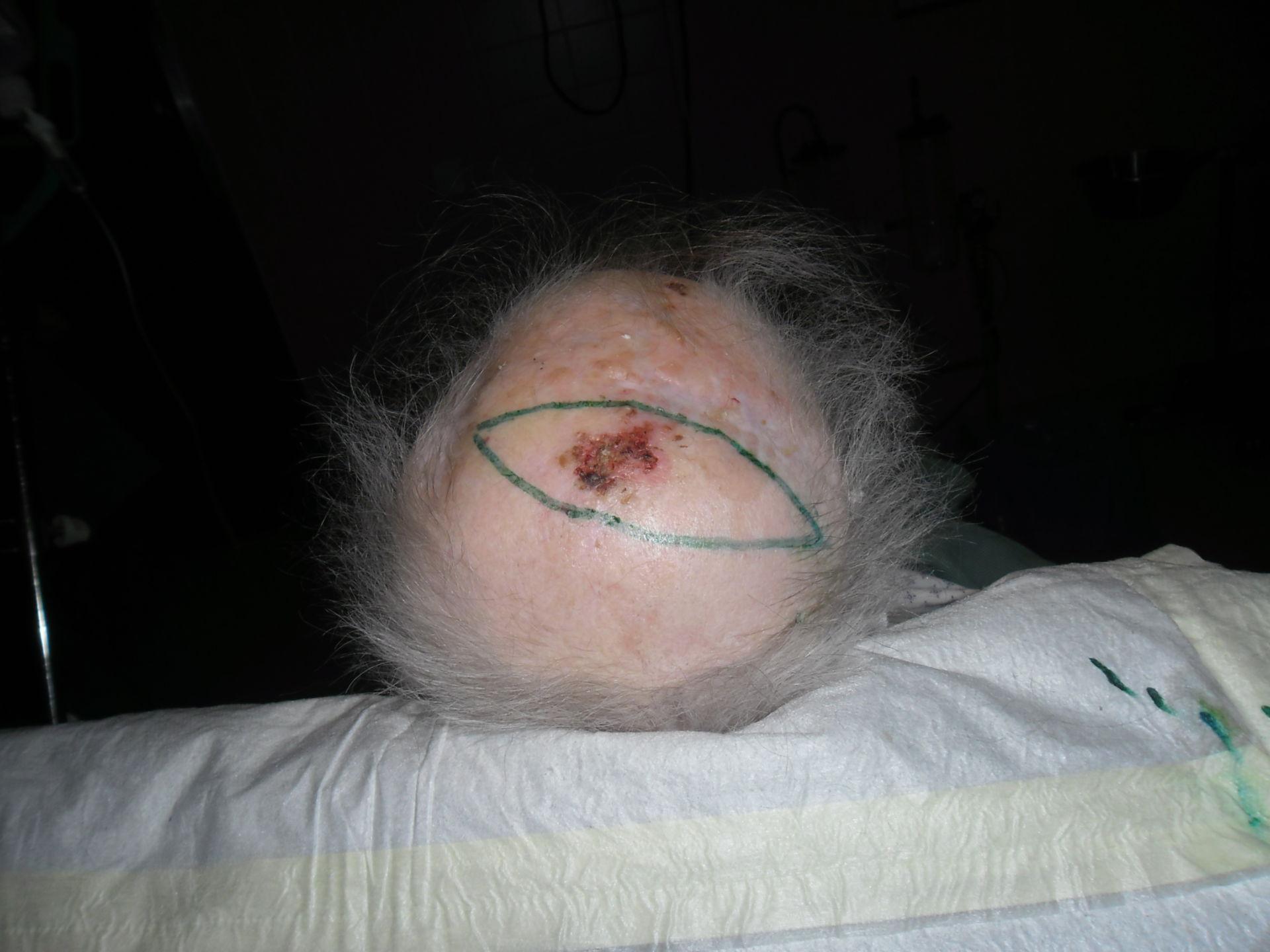 Carcinoma escamoso celular - relapso