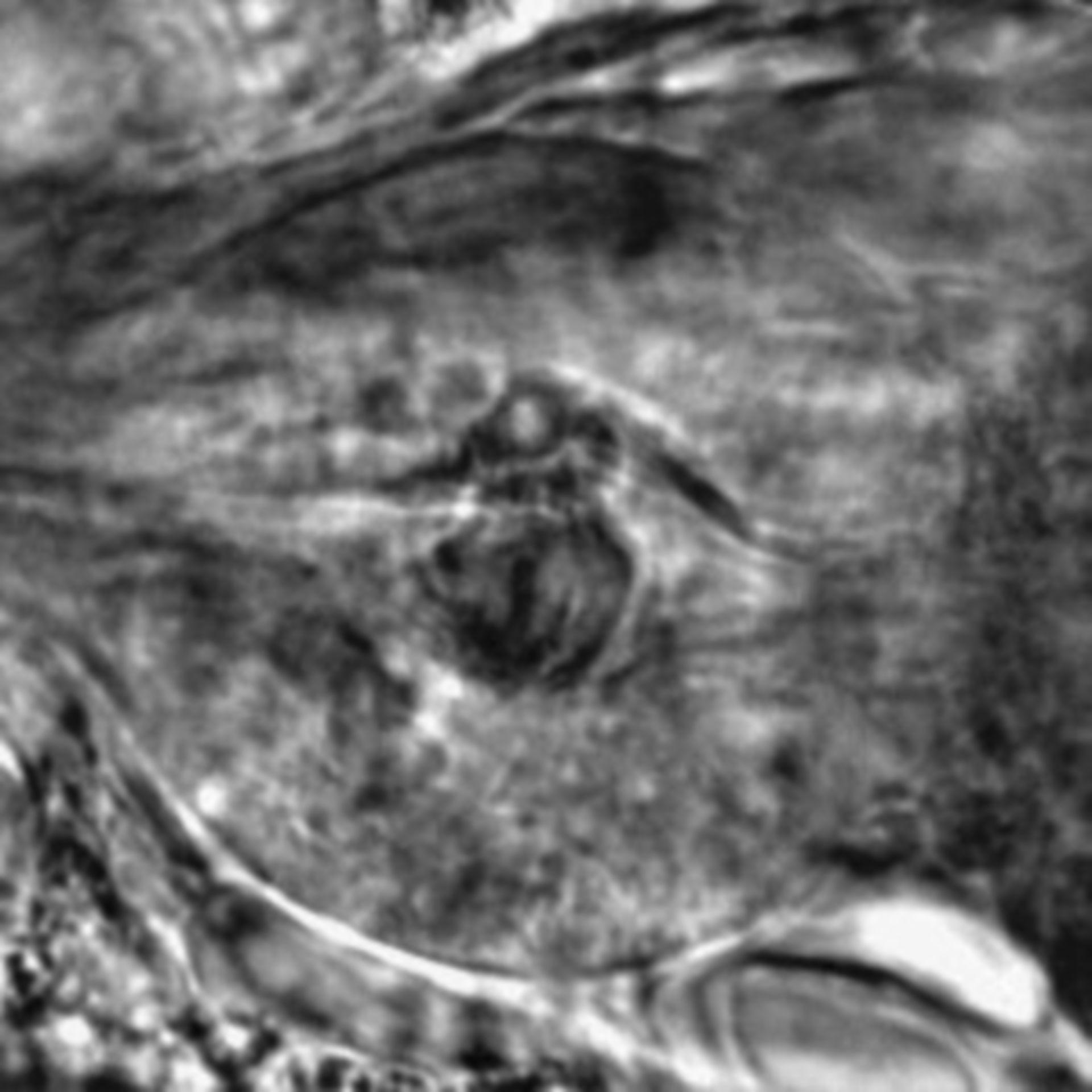 Caenorhabditis elegans - CIL:2283