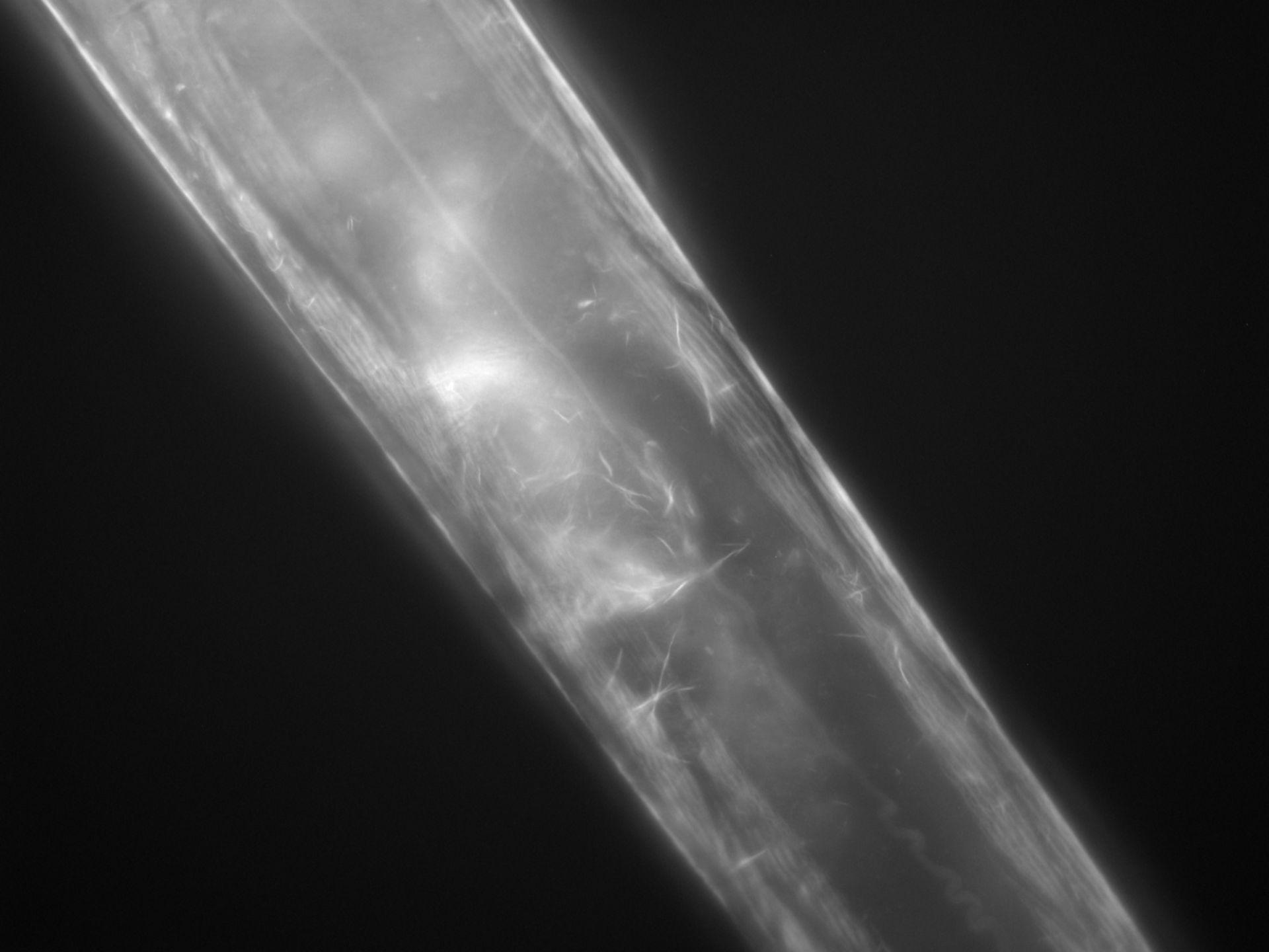Caenorhabditis elegans (Actin filament) - CIL:1269