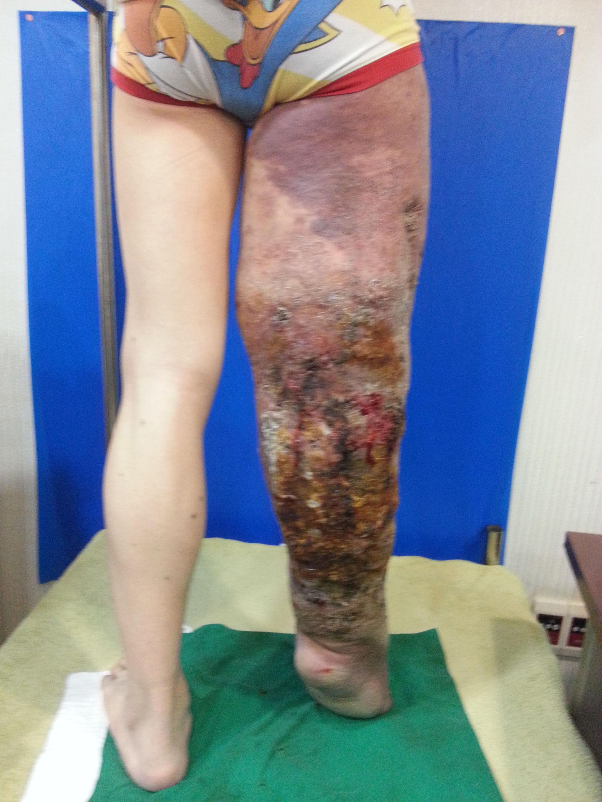 Patient mit Hyperkeratose