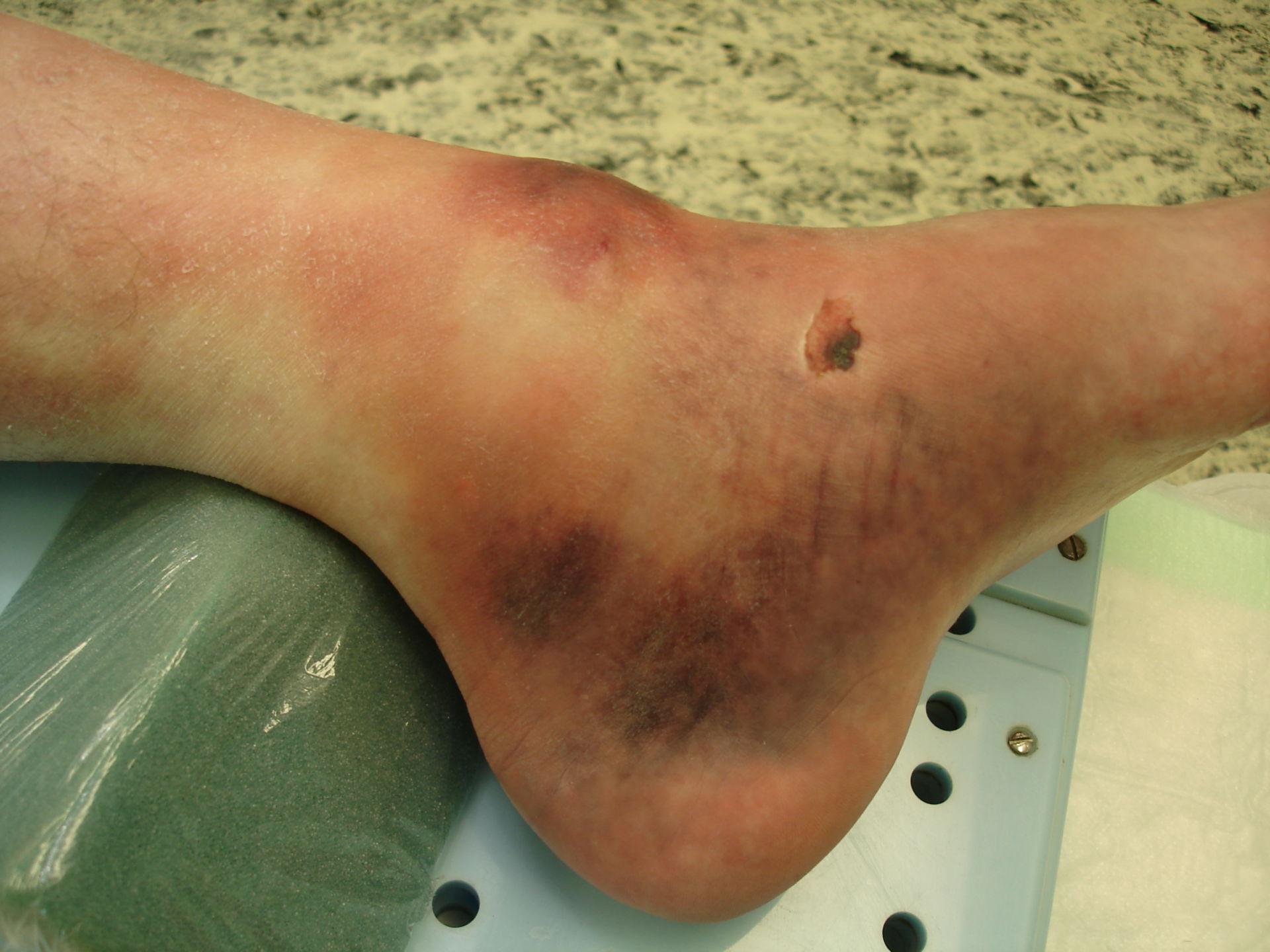 Fractura de tobillo, 24 horas después del incidente