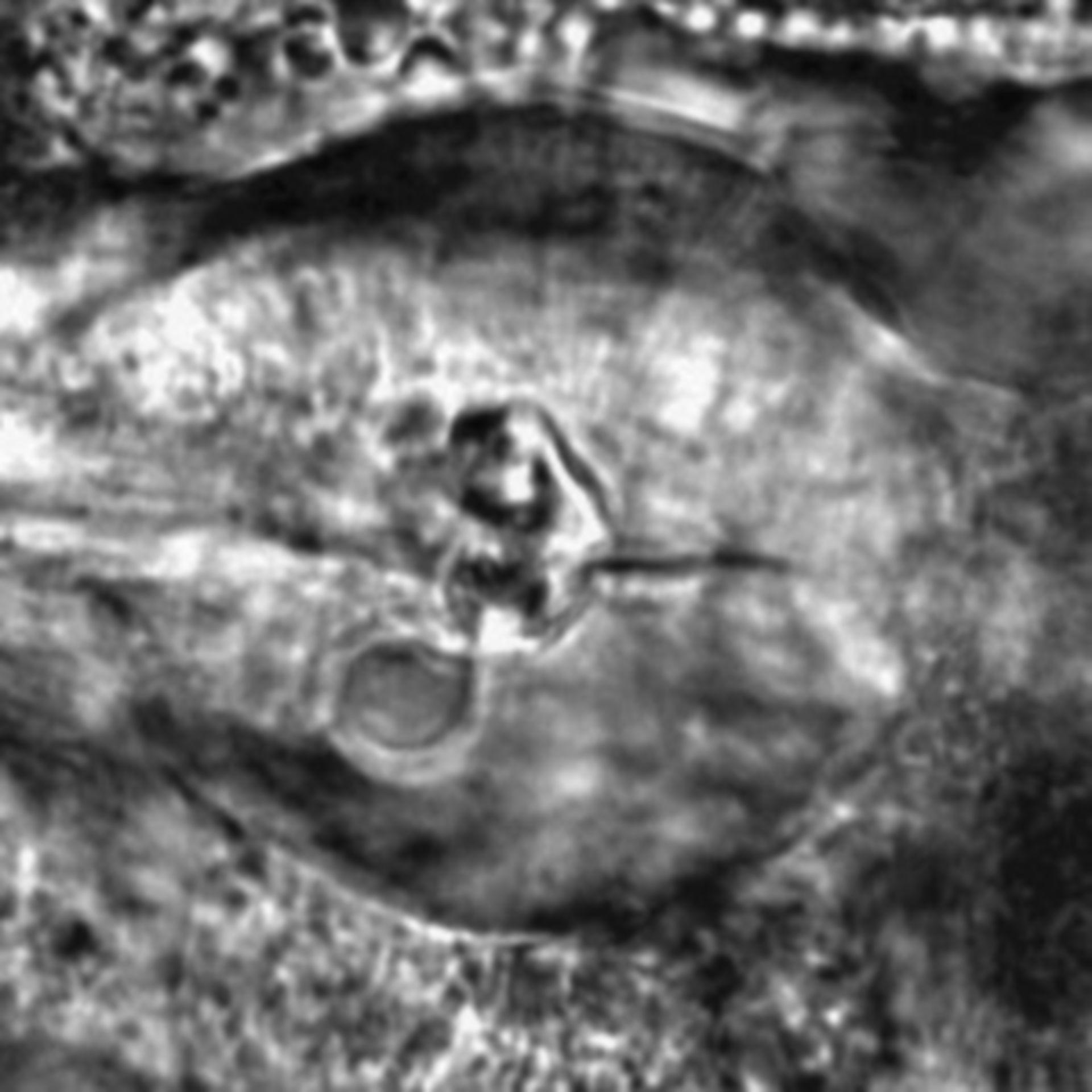 Caenorhabditis elegans - CIL:2294