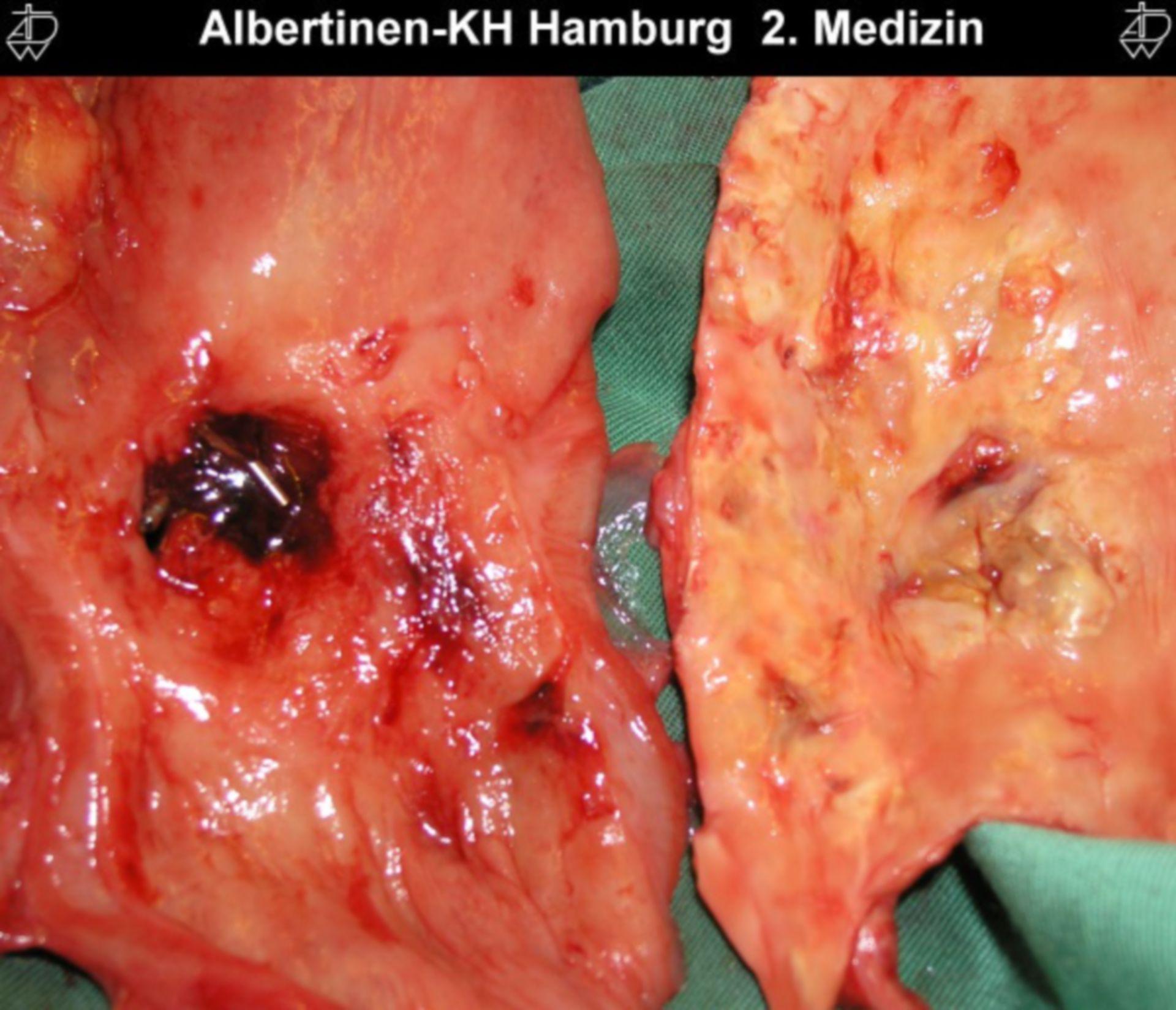 Perforazione dell'aorta