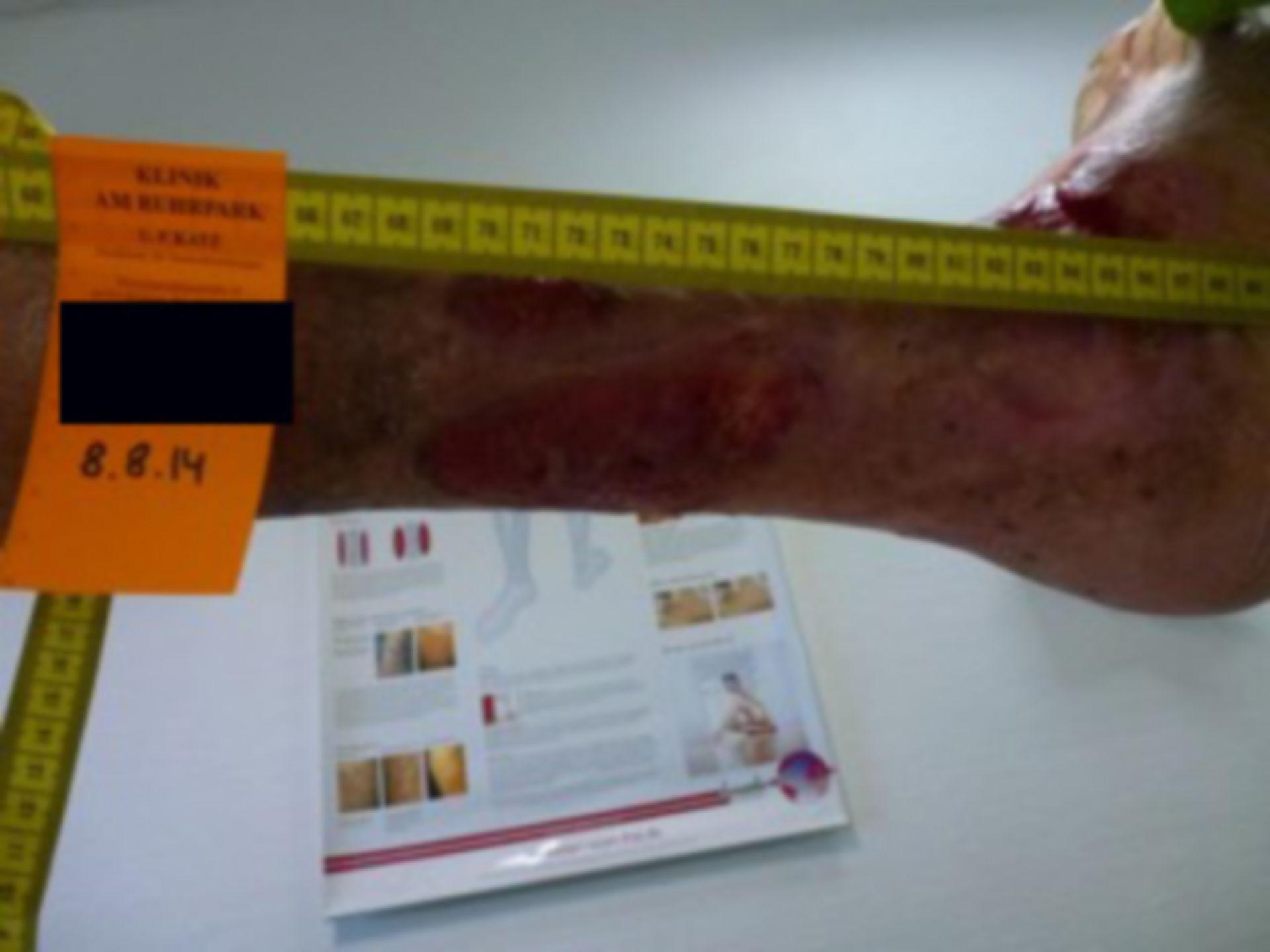 Úlcera de la pierna - abierta por 40 años (22)