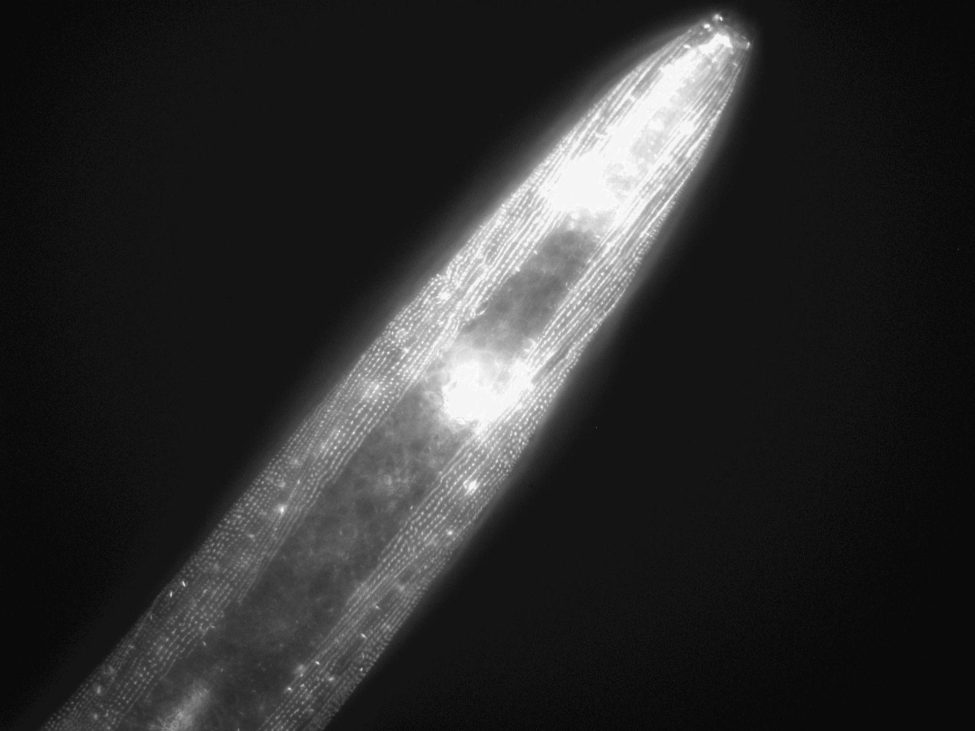 Caenorhabditis elegans (Actin filament) - CIL:1031