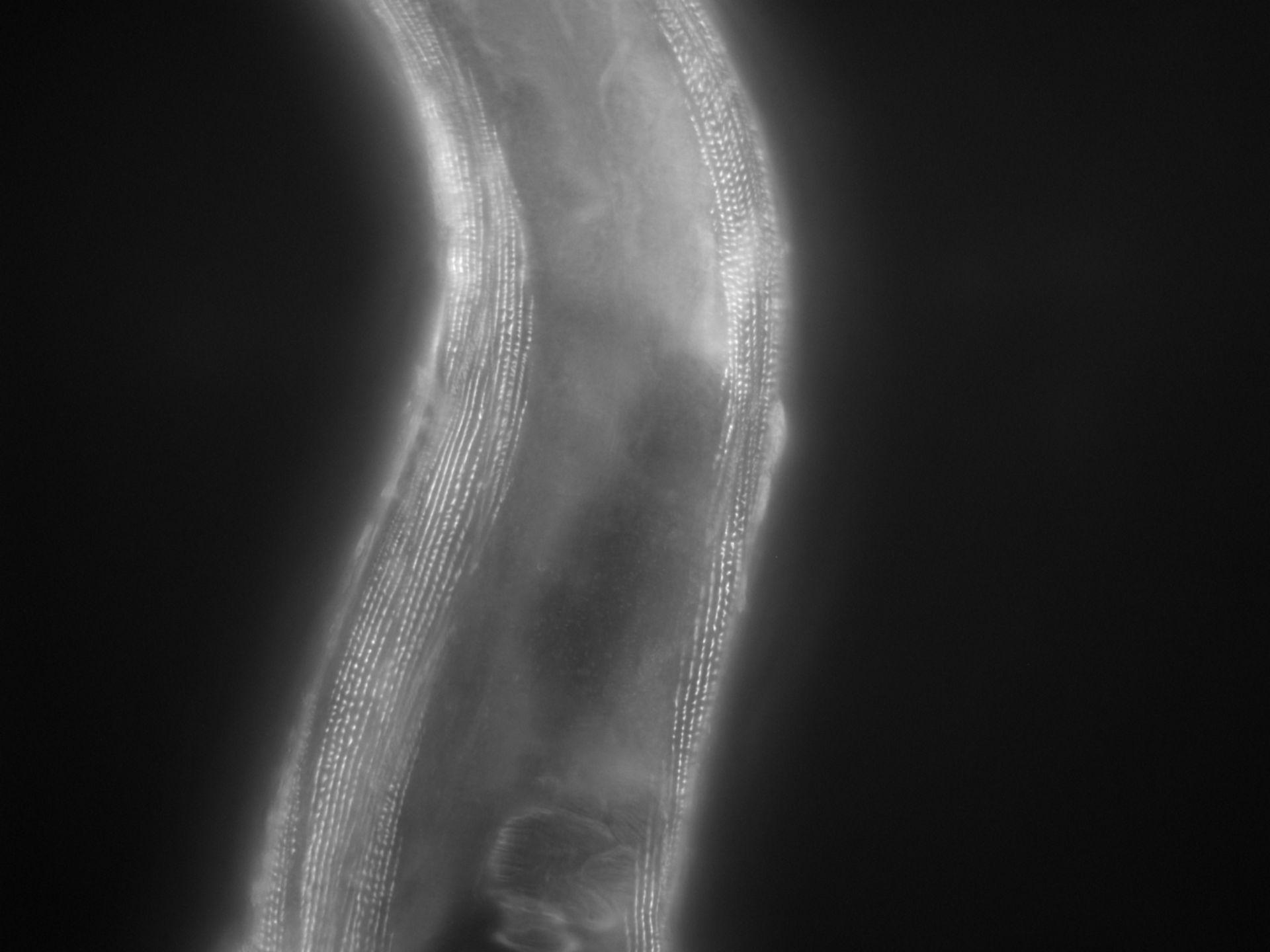 Caenorhabditis elegans (Actin filament) - CIL:1164
