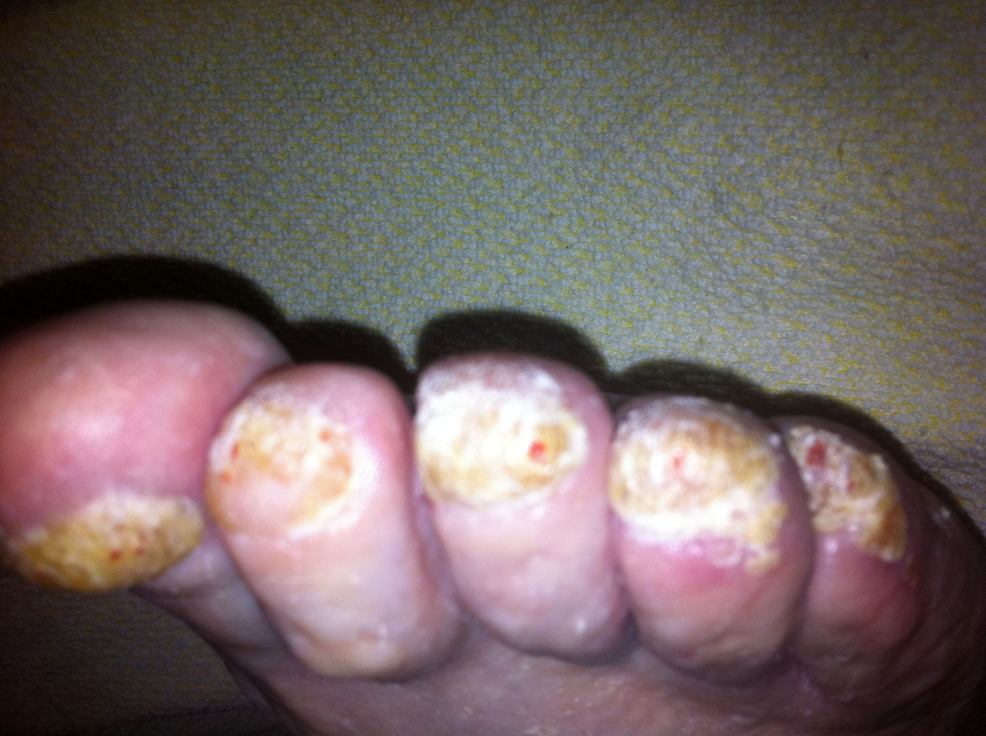 Psoriasis in the toe nail