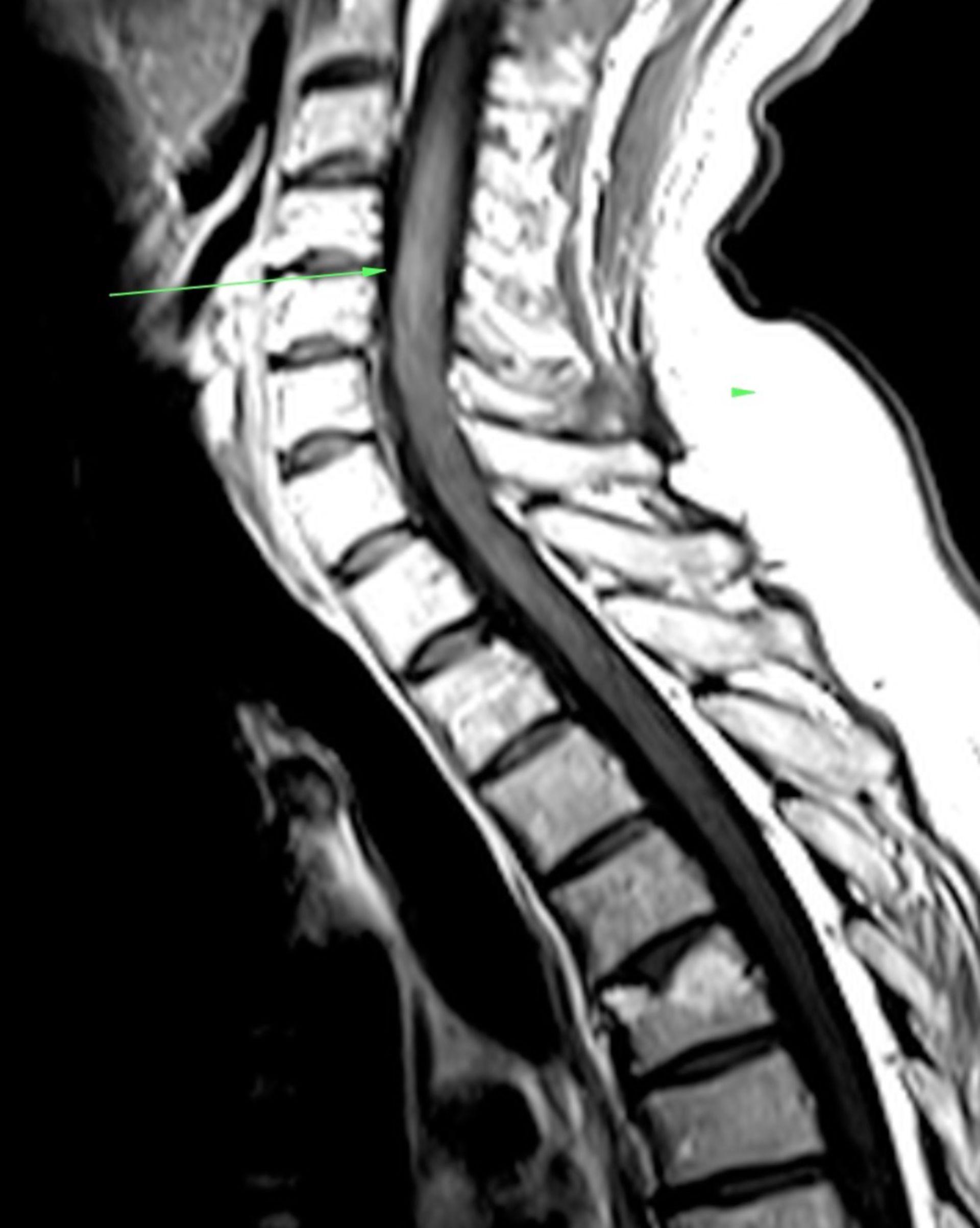 MRT der Halswirbelsäule in sagittaler Ebene mit MS Herd im Halsmark