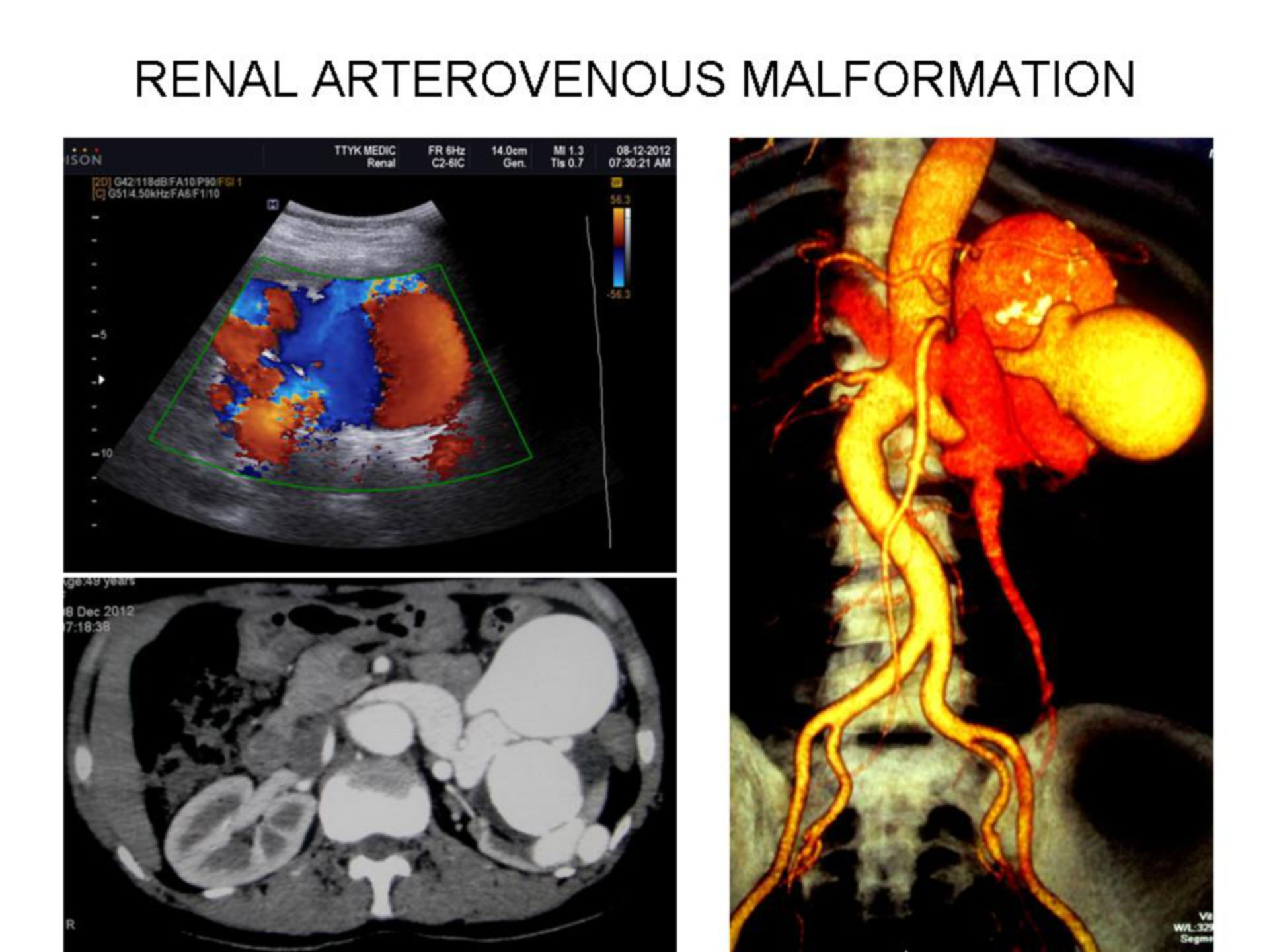 Renal Arterovenous Malformation