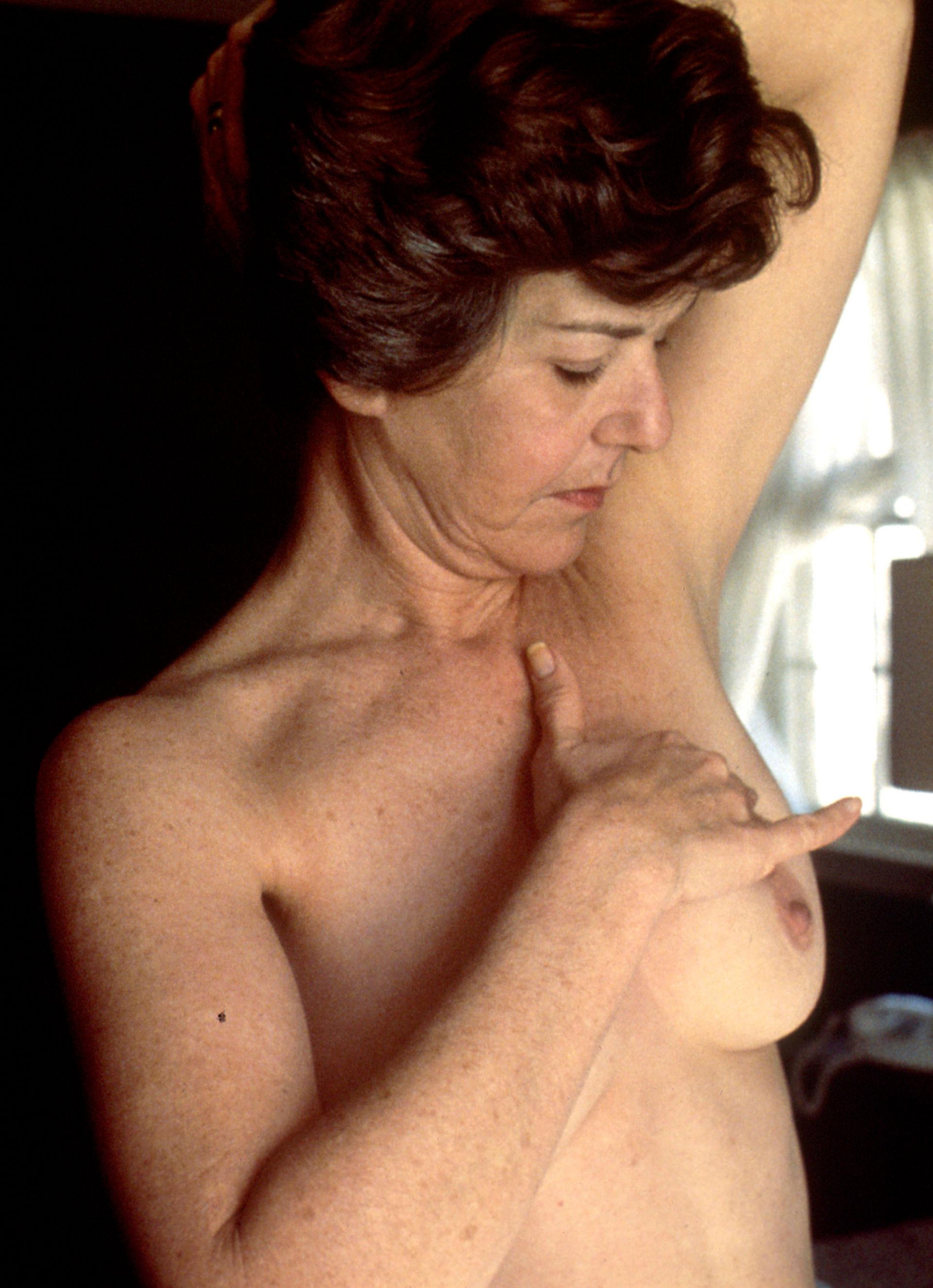 Breast cancer screening - self examination