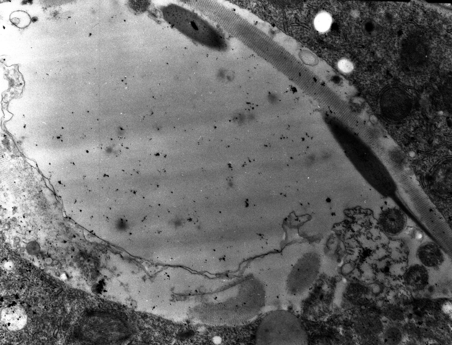Paramecium sp. (Tricocysti) - CIL:15449
