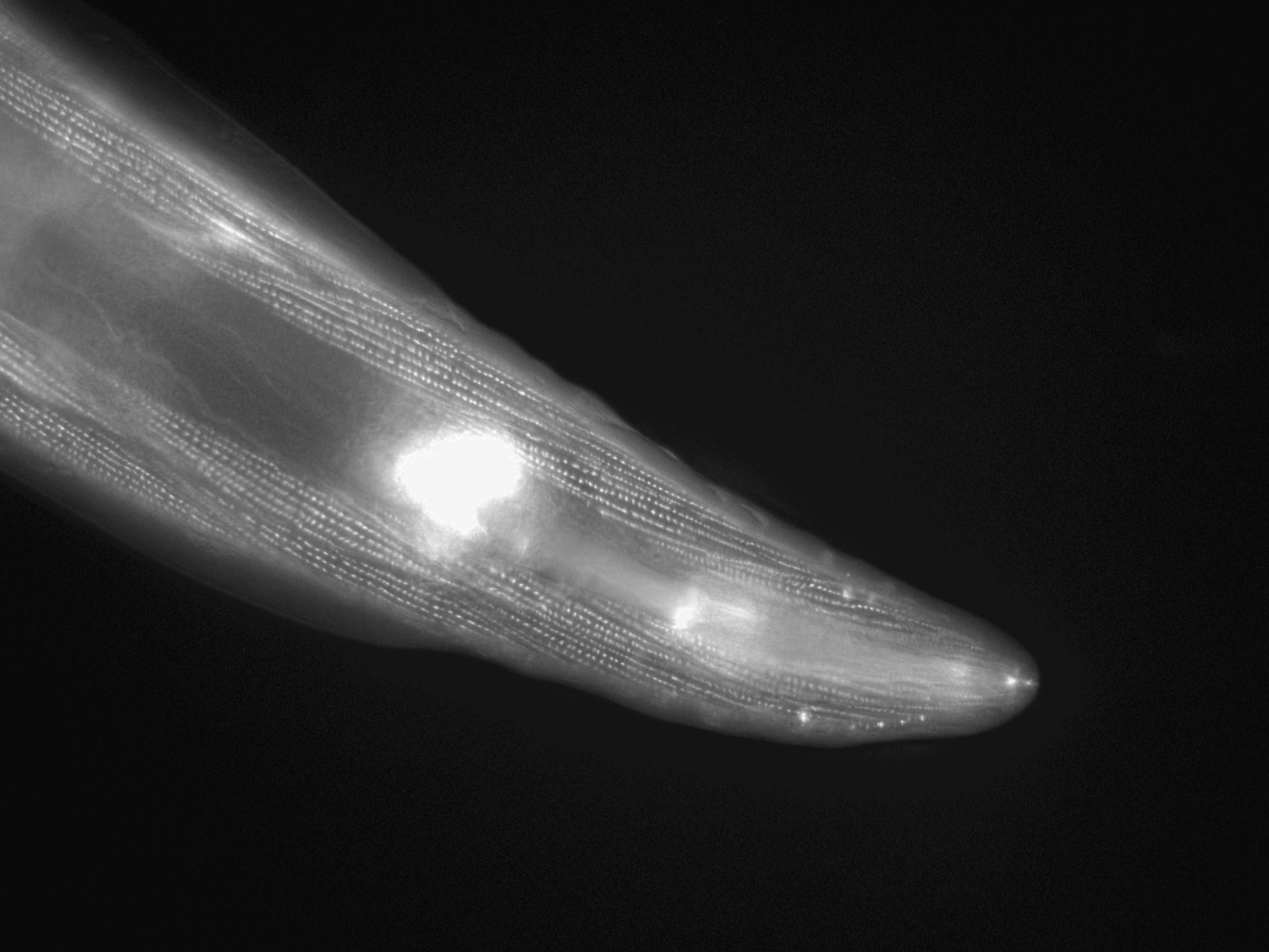 Caenorhabditis elegans (Actin filament) - CIL:1154