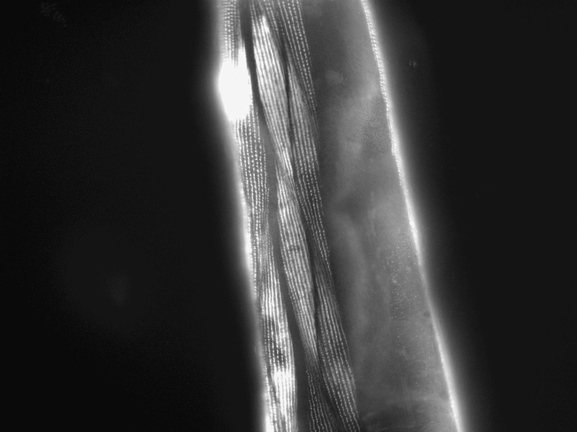 Caenorhabditis elegans (Actin filament) - CIL:1189