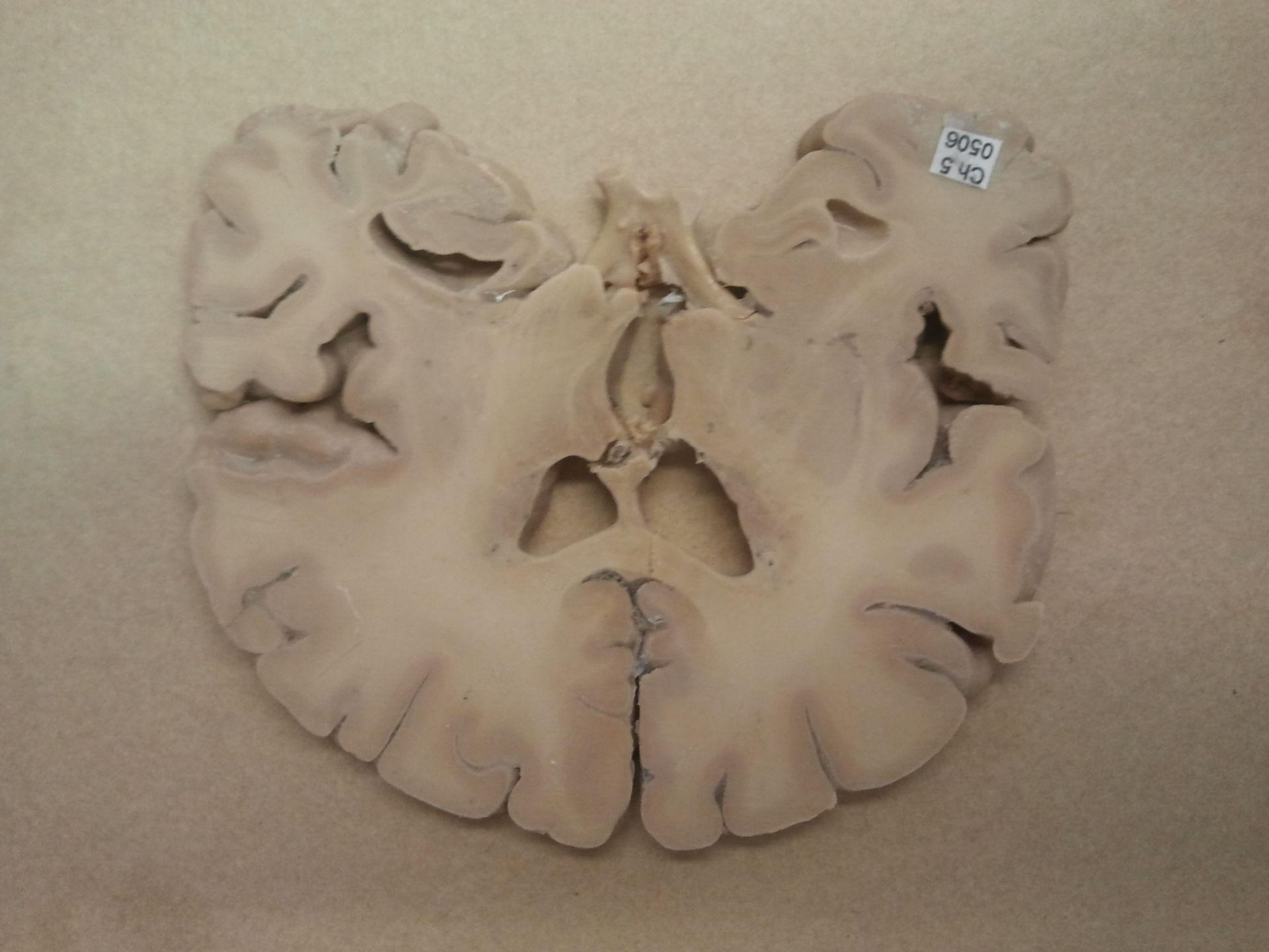 Hirnschnitt mit Ventrikel lateral mit insula Anteil