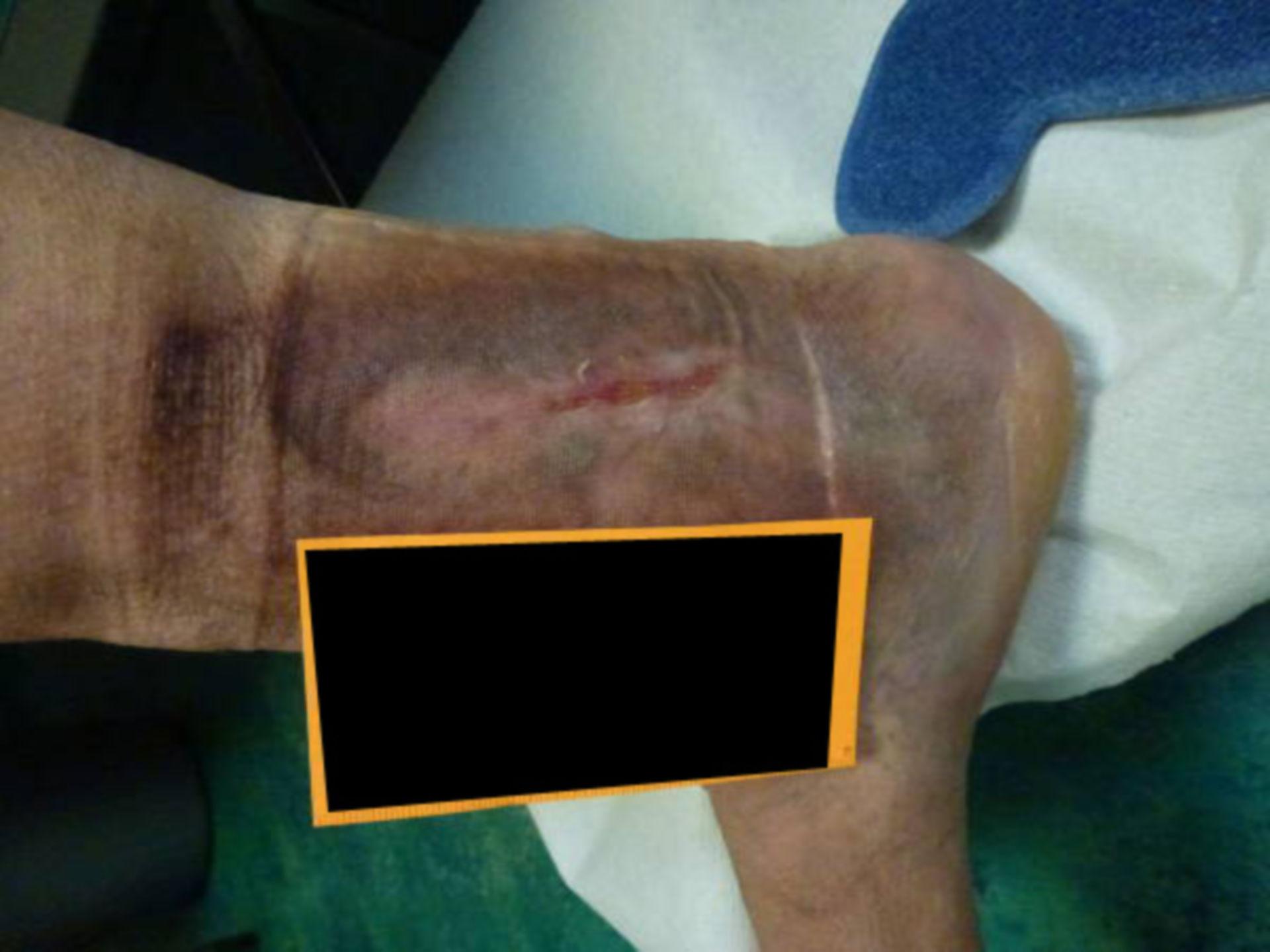 Úlcera desde 2012 después de una trombosis de 3-4 niveles