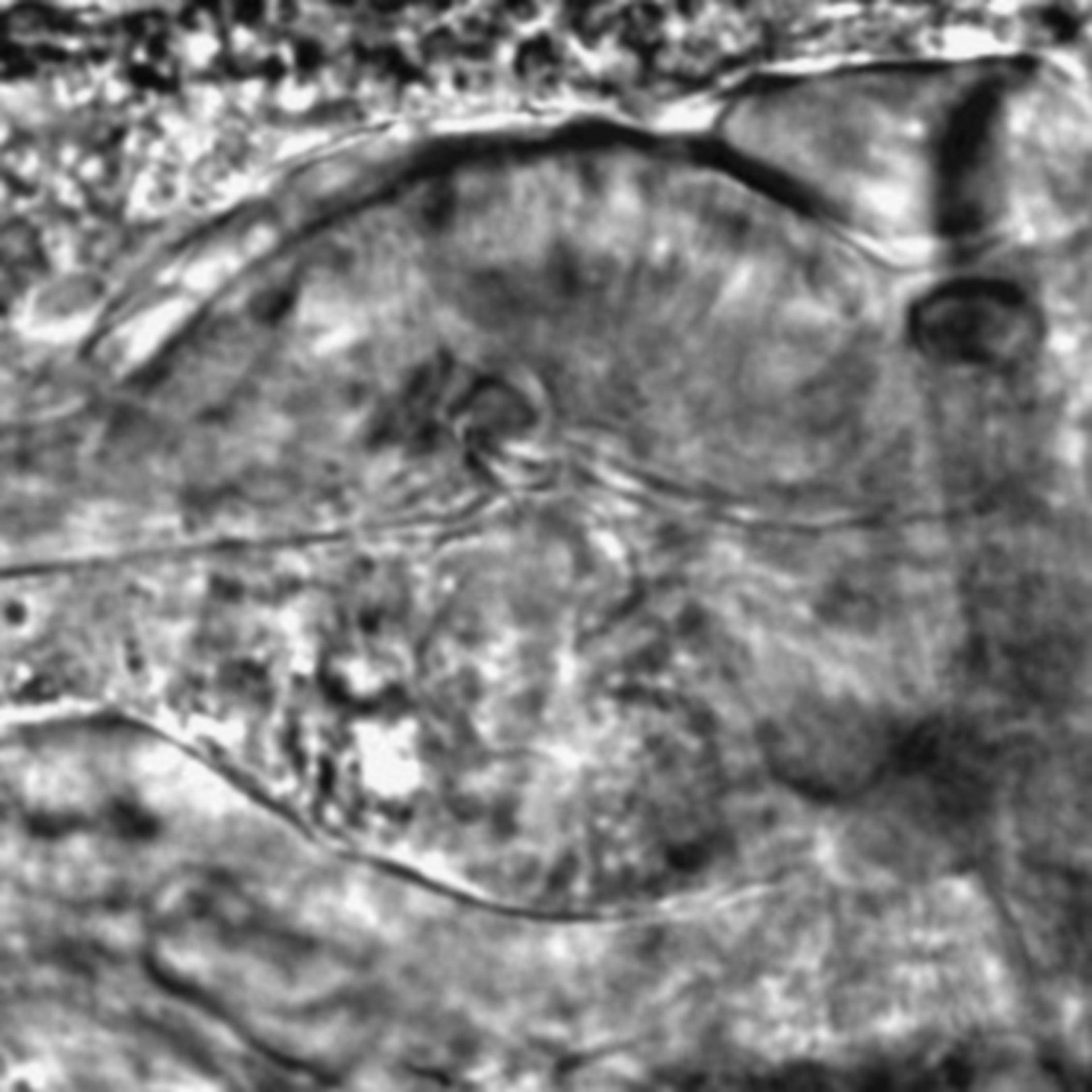 Caenorhabditis elegans - CIL:2156