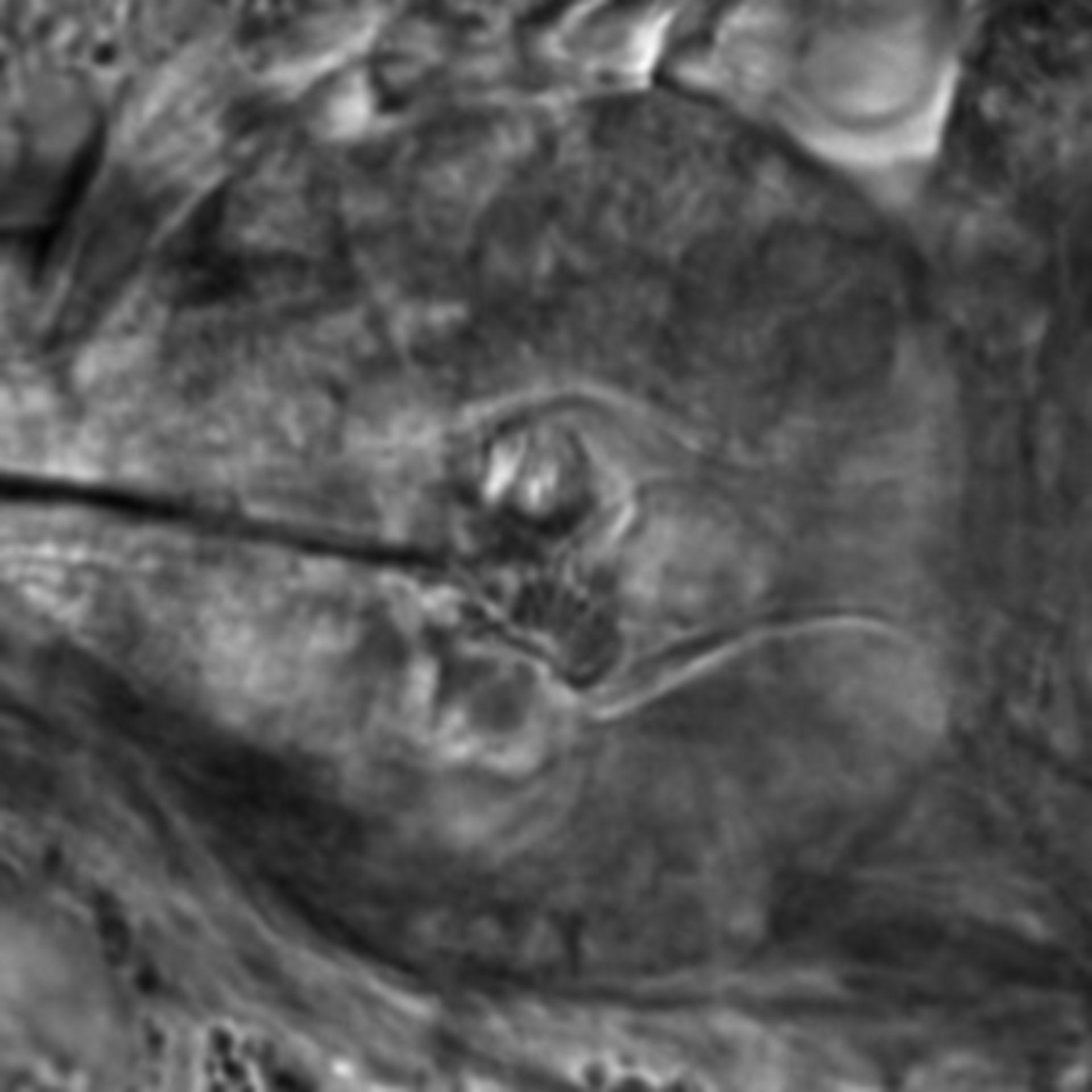 Caenorhabditis elegans - CIL:2694