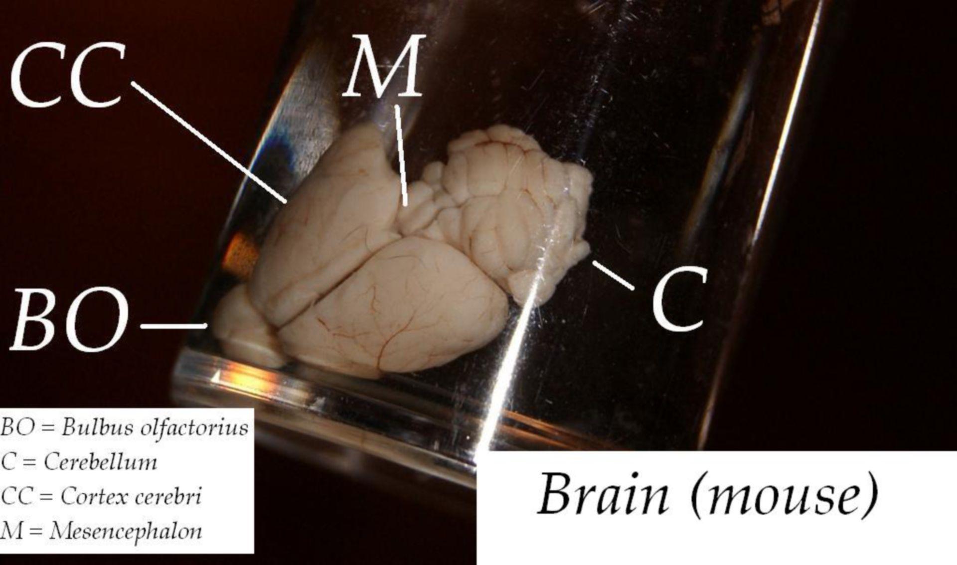 Brain (mouse)