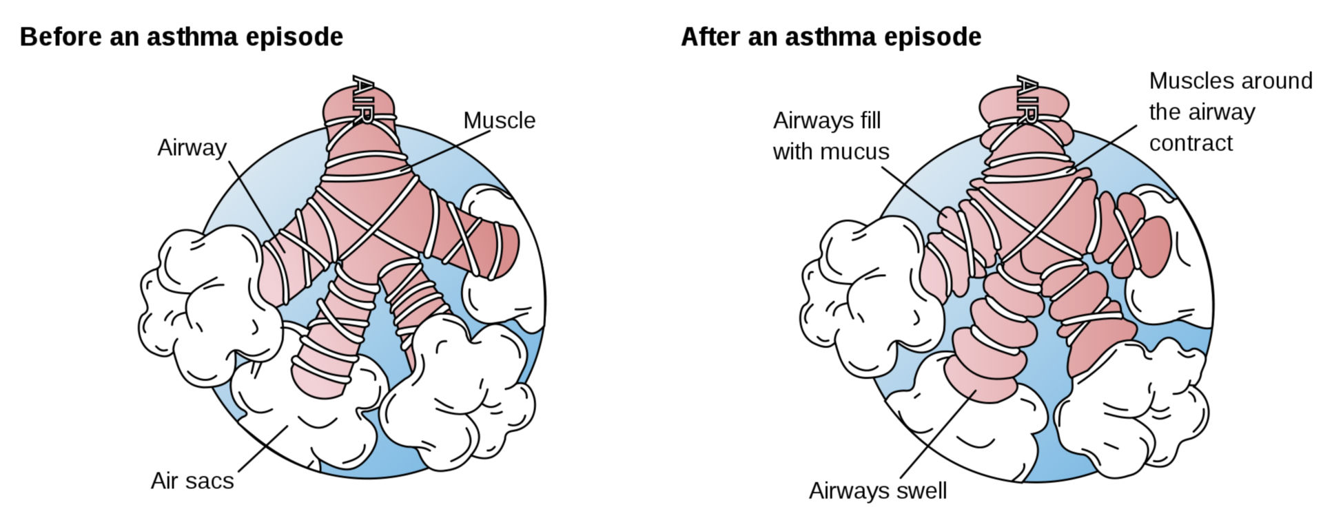 Asthma Episode