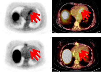 Entzündungsprozesse am Herzens mittels nuklearmedizinischer Verfahren dargestellt (DOTATOC-PET/CT). Die Pfeile zeigen auf die Entzündungsaktivität in der Herzscheidewand (Pfeile). © DZHI/Bauer