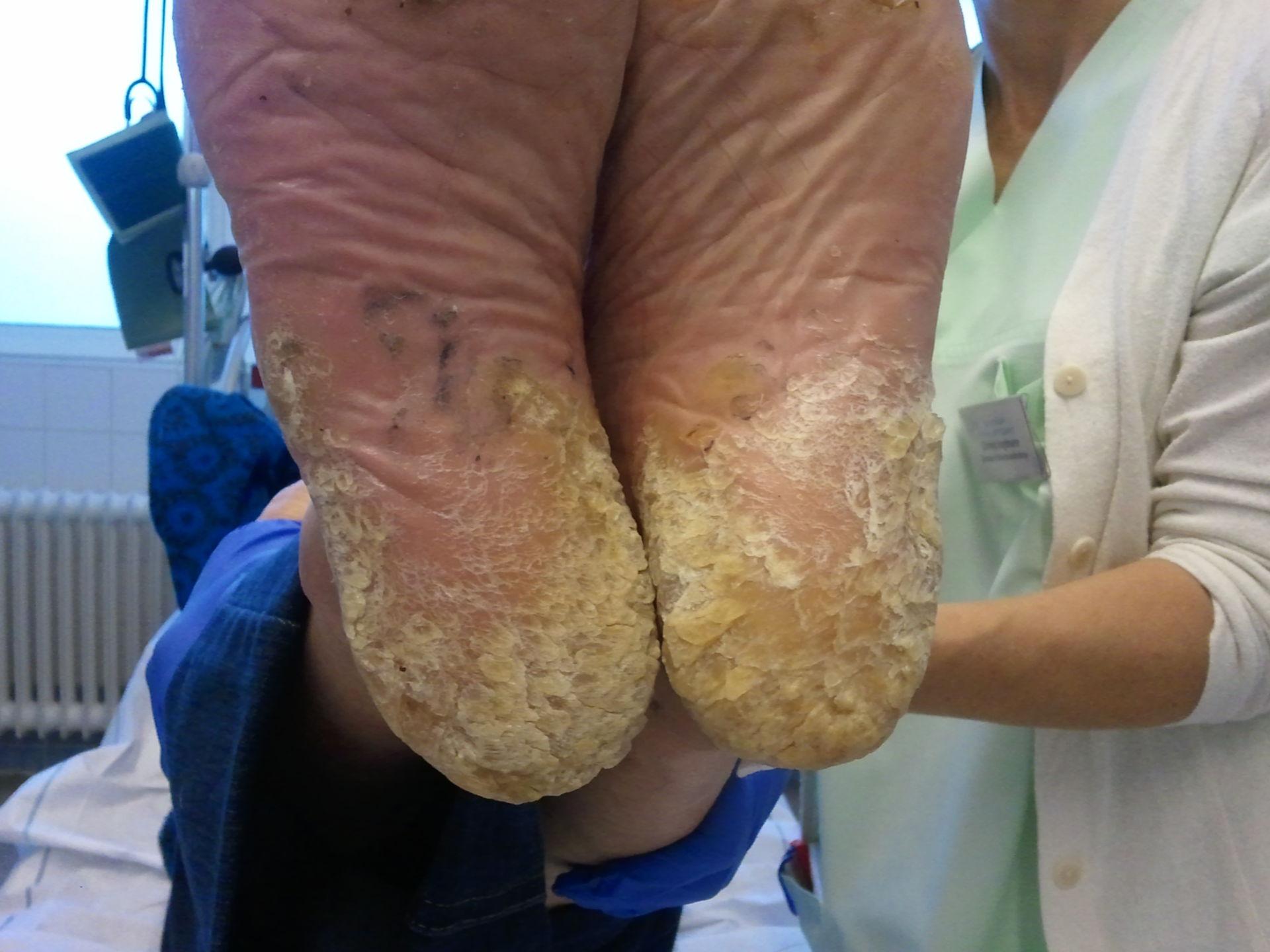 Hyperkeratose Fuß