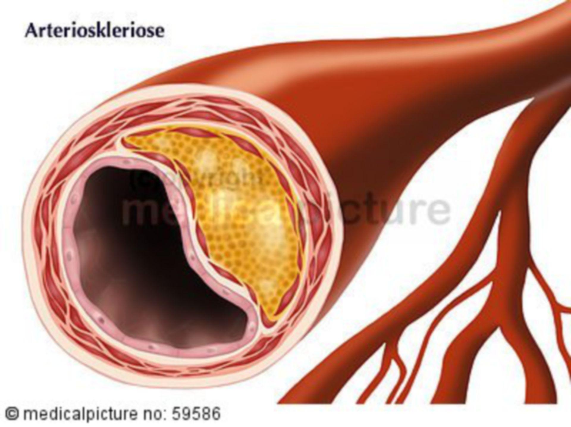 Artherosklerose