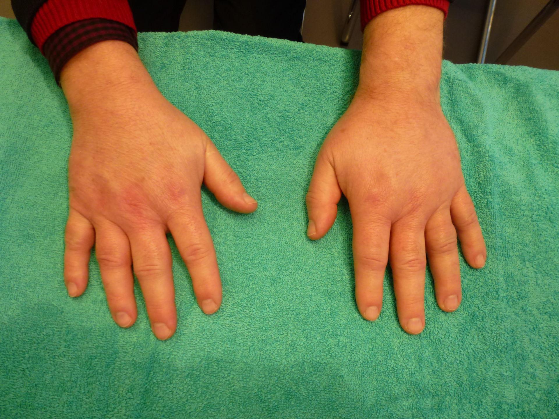 Pitting edema (3)