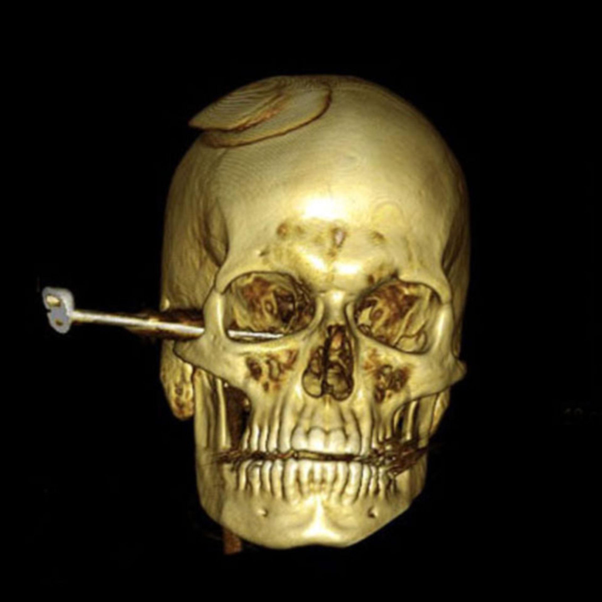 Coltello conficcato nel cranio (TC-ricostruzione 3D)