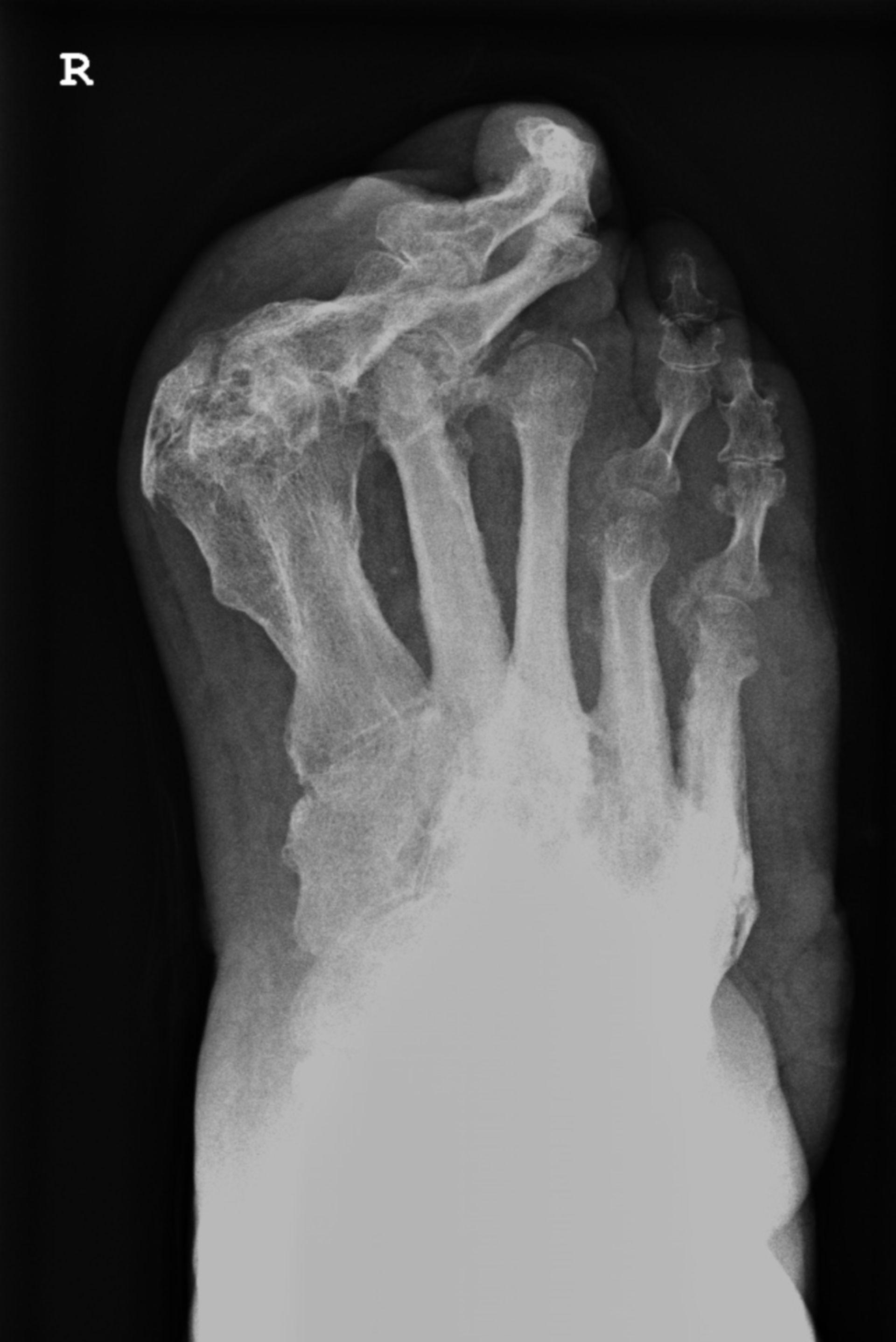 Röntgen eines rechten Fußes mit ausgeprägter Halluxfehlstellung