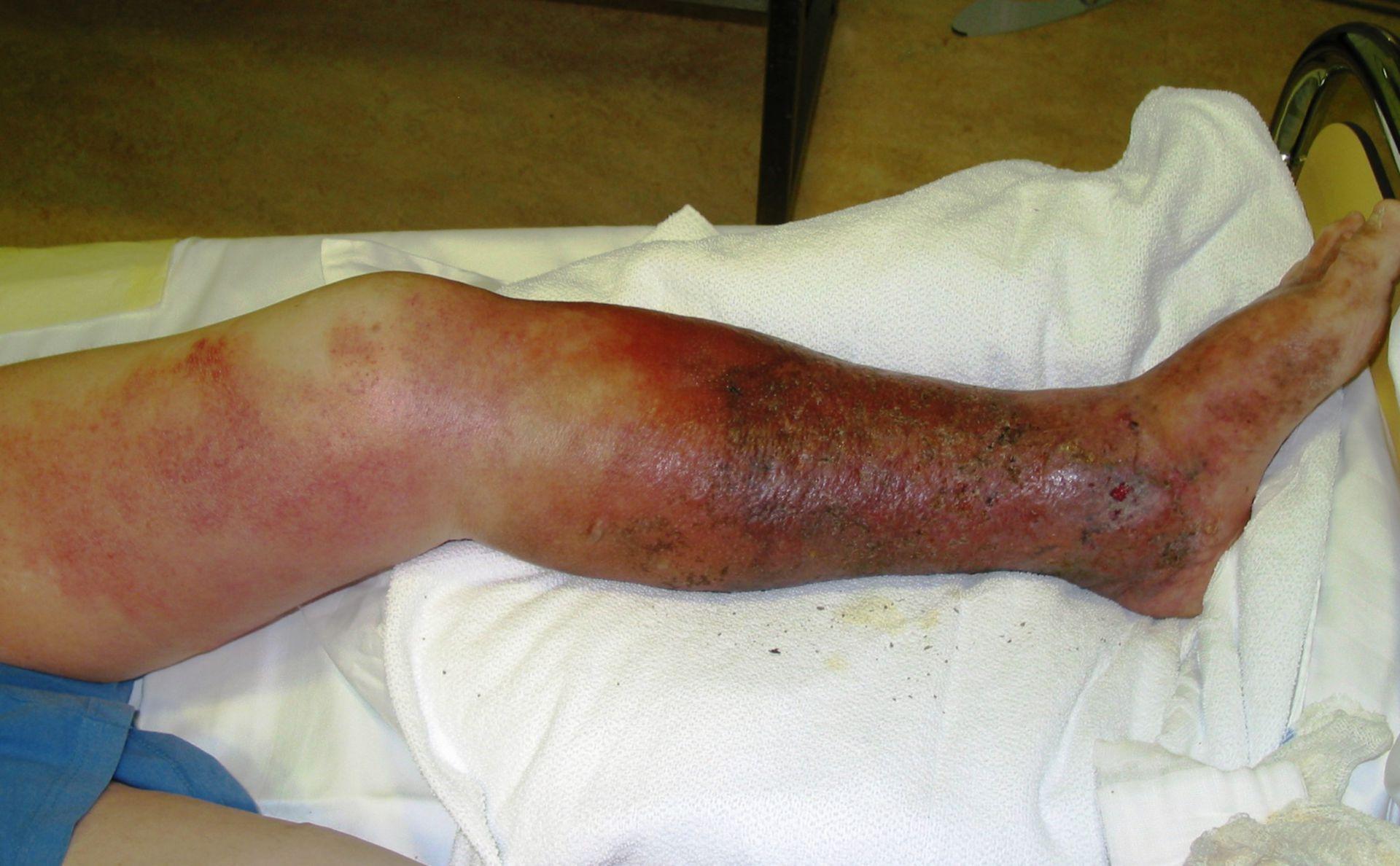 Ulcera crural - Insuficiencia venosa crónica - Erisipela