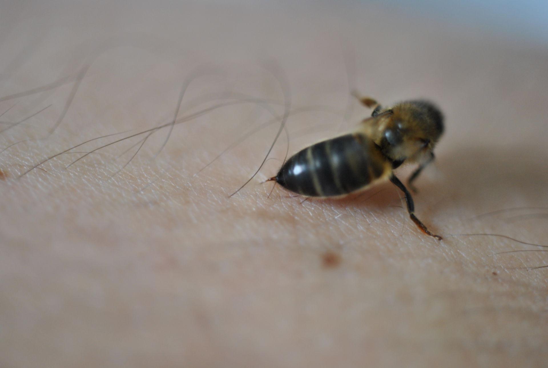 Biene beim Stechen auf der Haut.