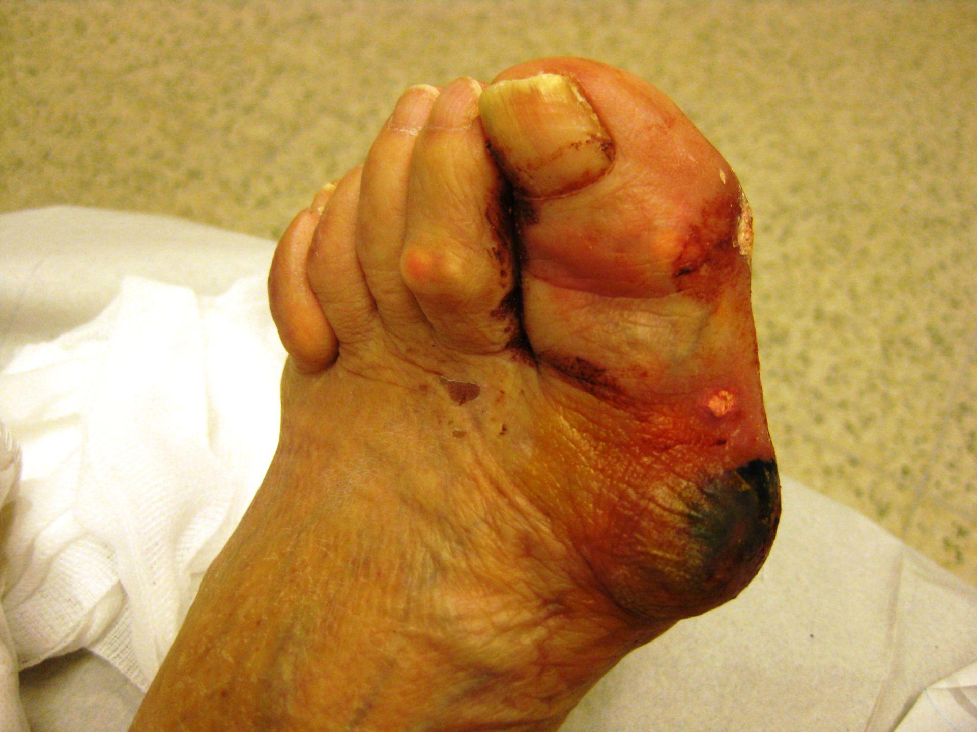 Diabetischer Fuß plus Gicht
