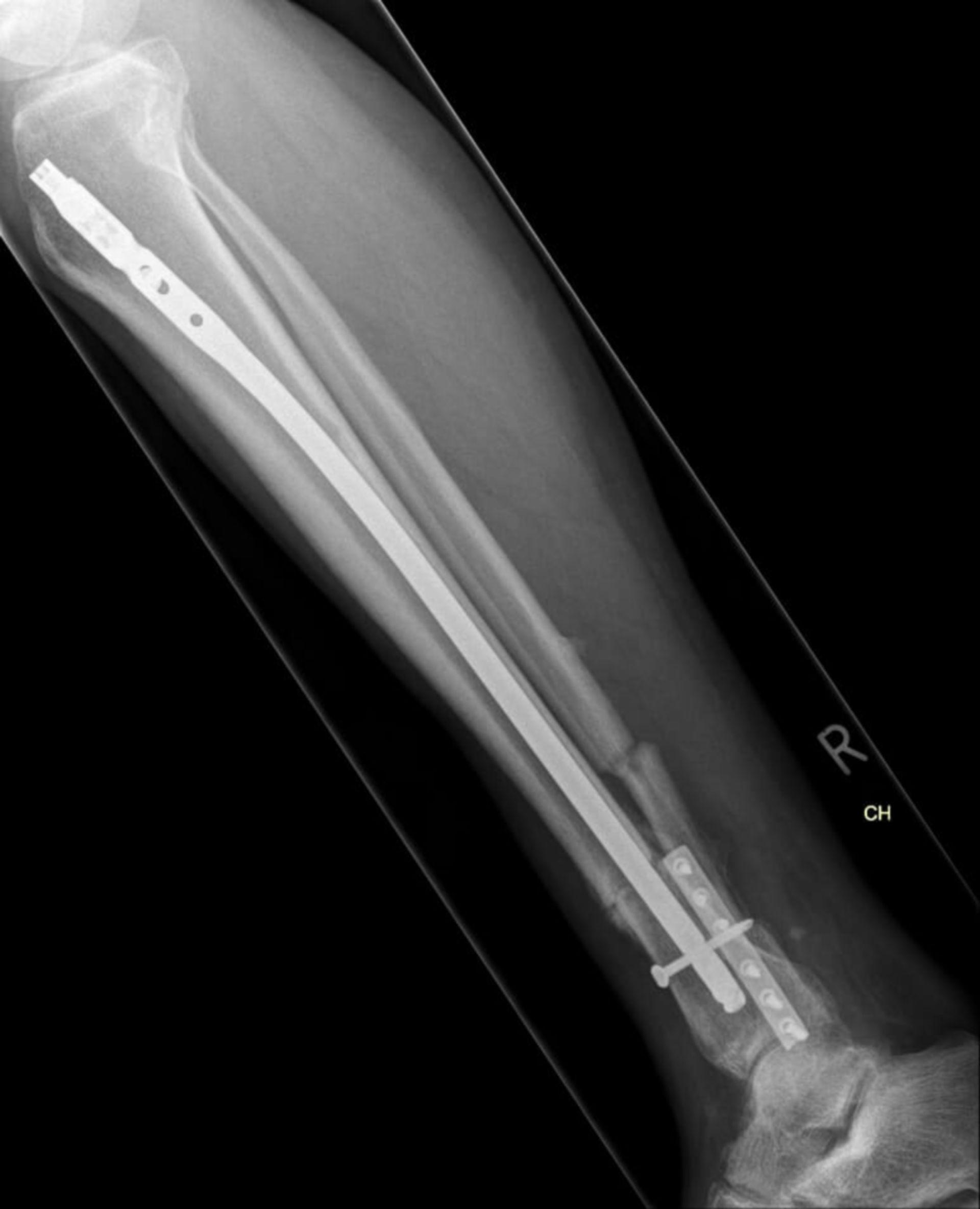 us_lat_29.07.15: Röntgen des Unterschenkels