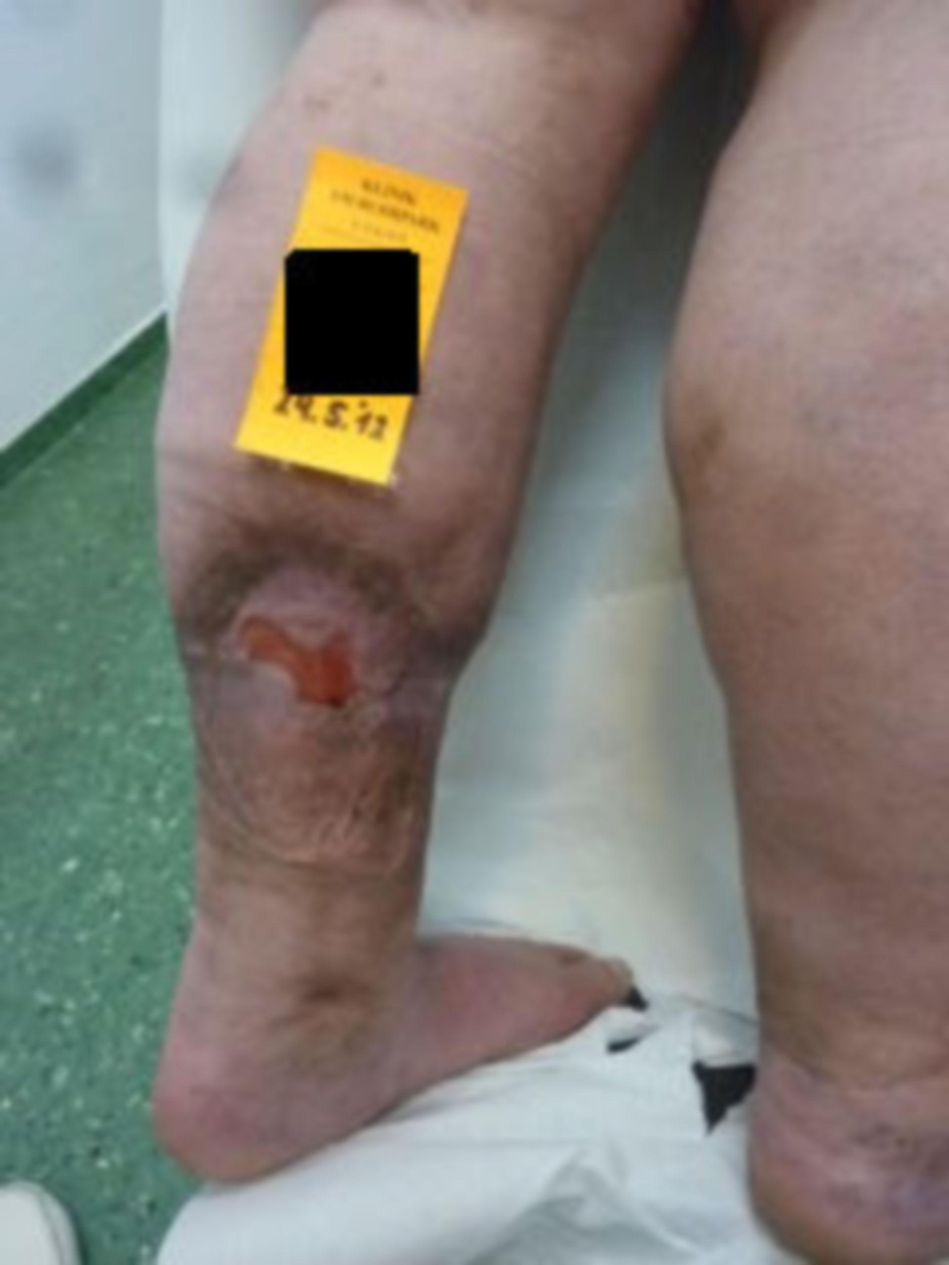 Úlcera de la pierna, abierta por 7 años (31) - 24.05.12