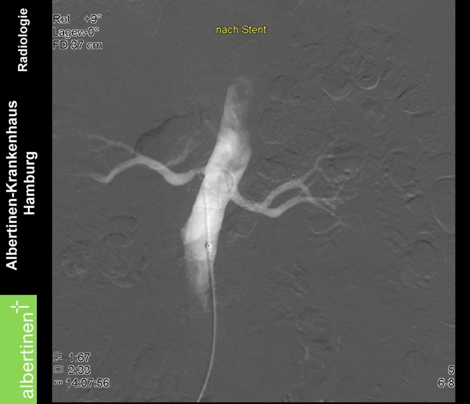 Stenosi dell'arteria renale: dopo lo stent