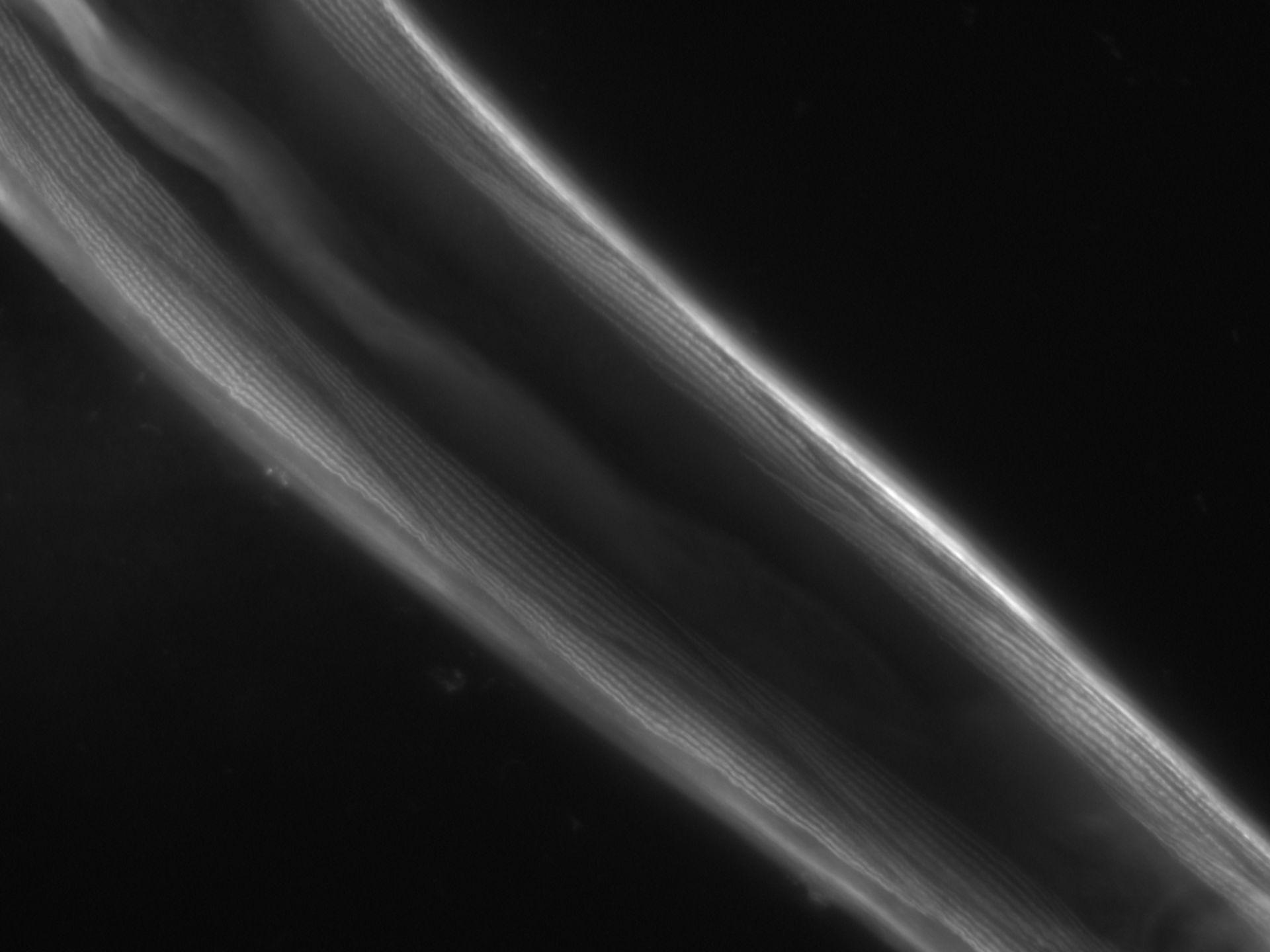 Caenorhabditis elegans (Actin filament) - CIL:1078