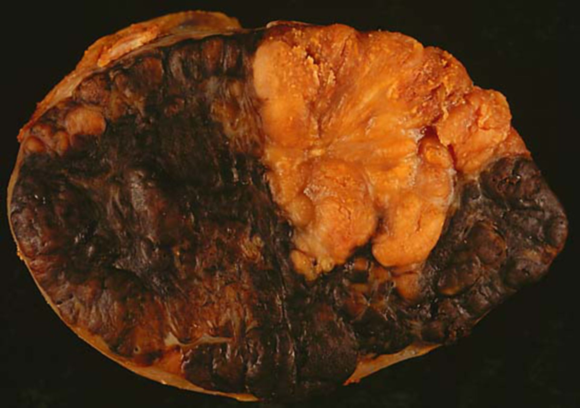 Lymphknoten-Metastase eines Melanoms (Präparat)