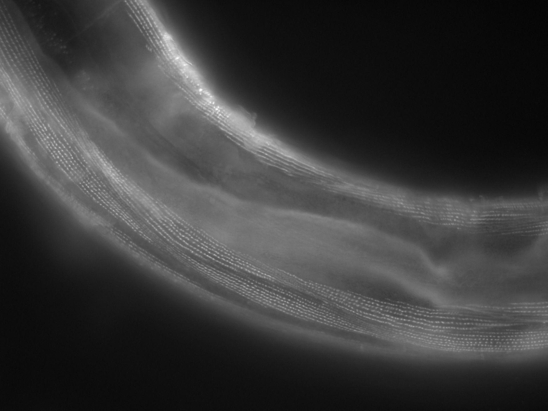 Caenorhabditis elegans (Actin filament) - CIL:1162
