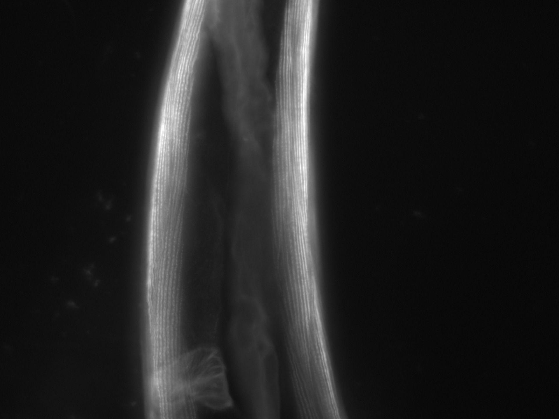 Caenorhabditis elegans (Actin filament) - CIL:1079