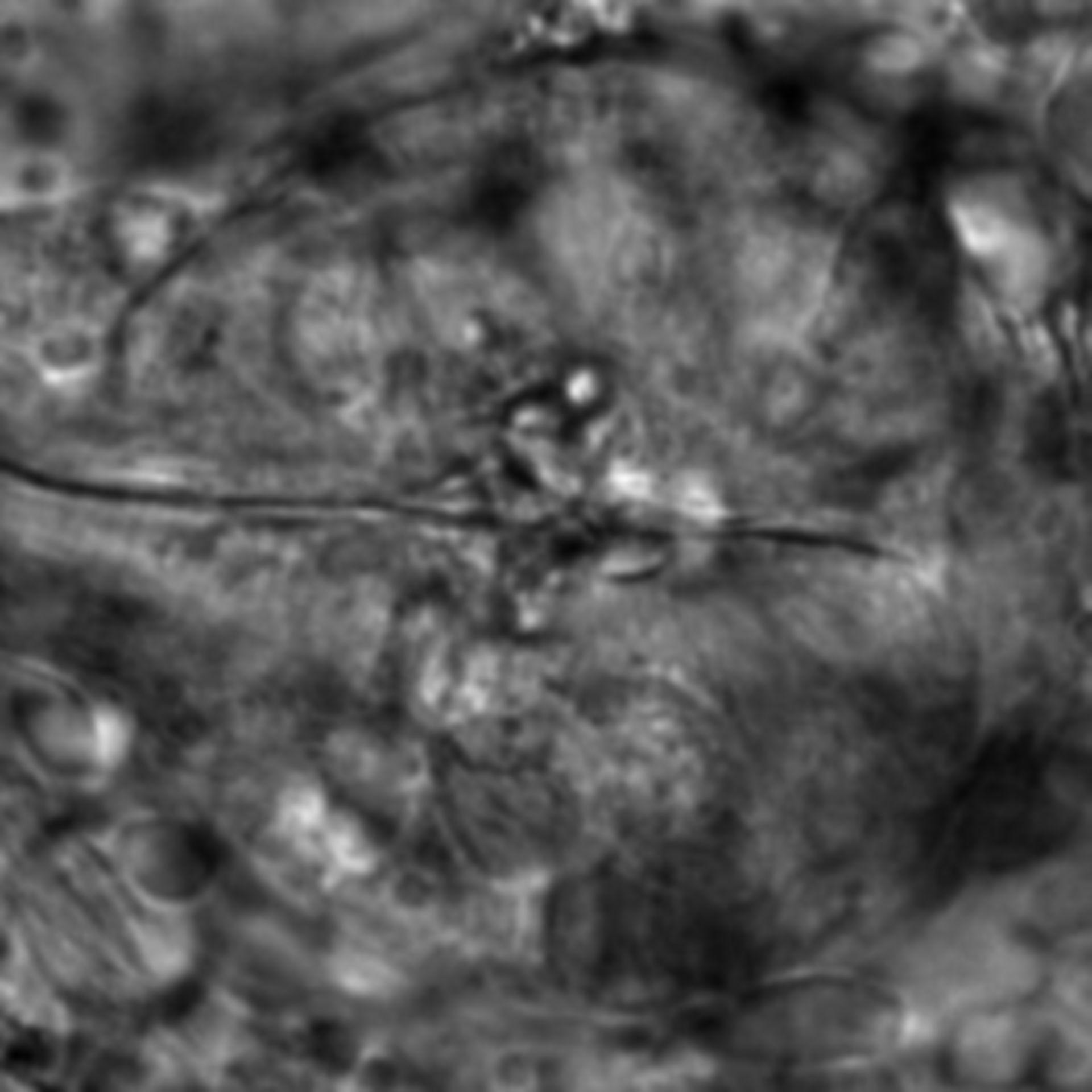 Caenorhabditis elegans - CIL:2655