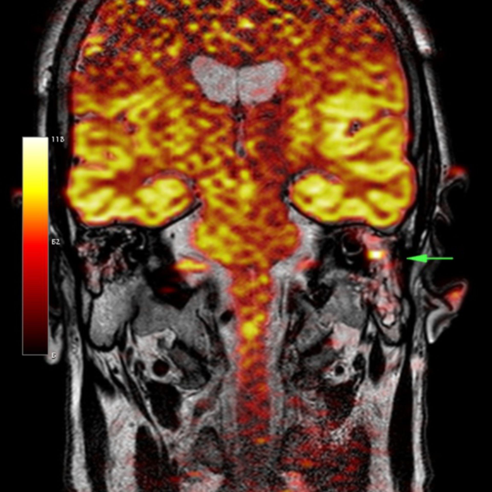 Cholesteatoma (diffusion MRI)