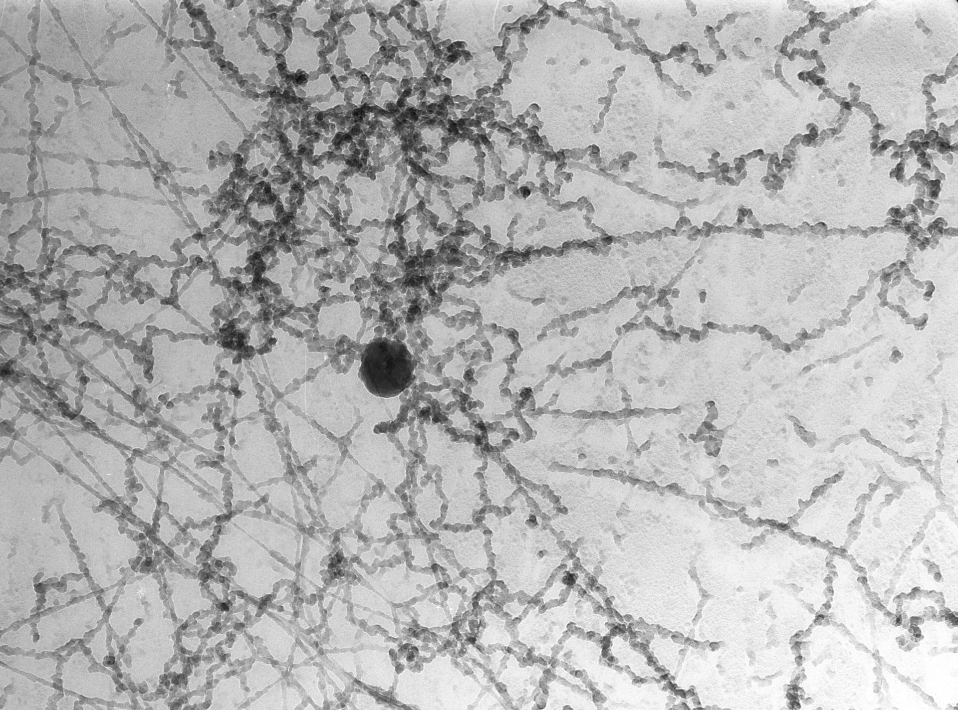 Notopthalmus viridescence (Nuclear chromatin) - CIL:10090