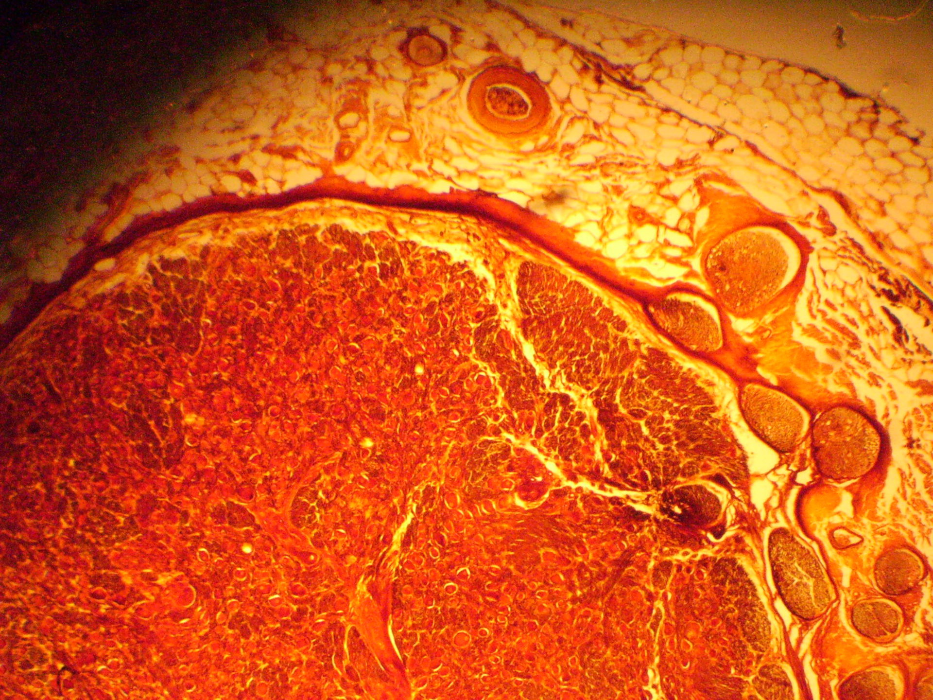 Multipolare Ganglienzelle