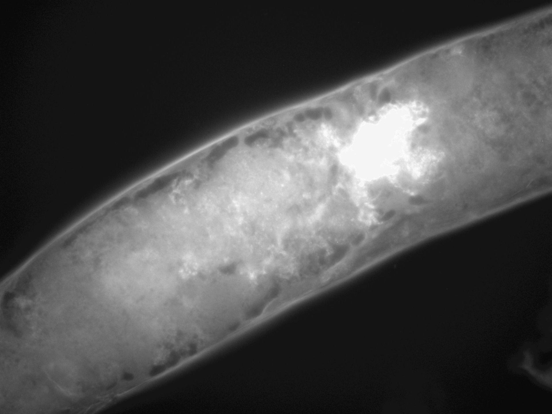 Caenorhabditis elegans (filamento di actina) - CIL:1272