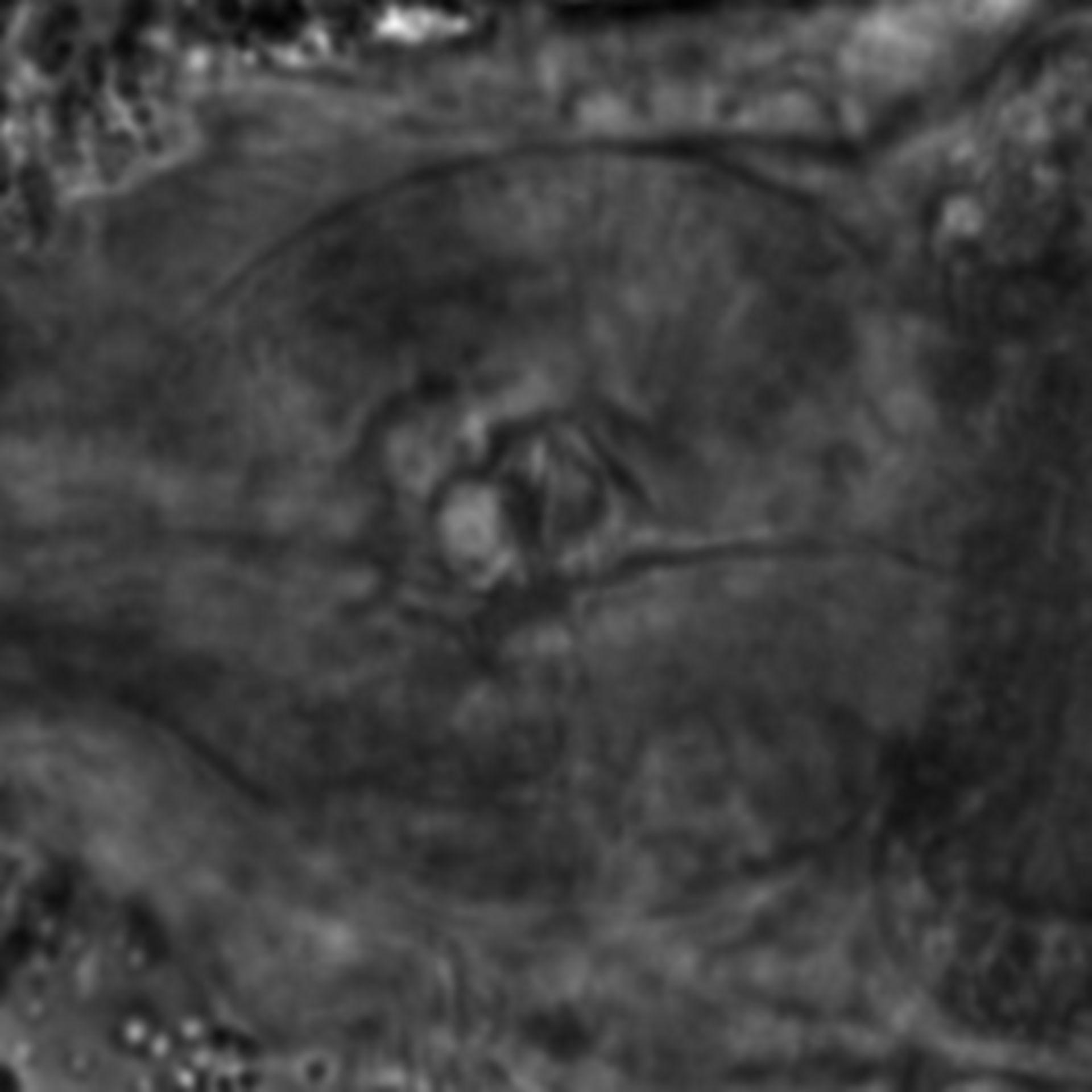 Caenorhabditis elegans - CIL:1906